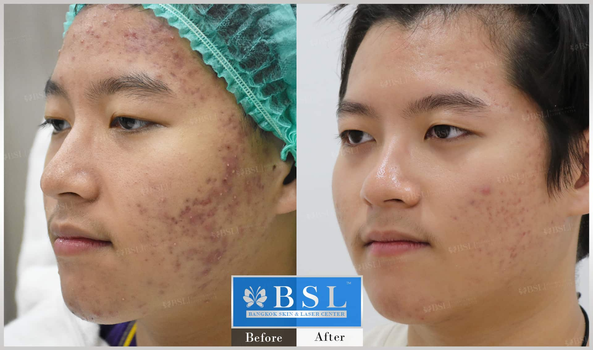 before-after-results-acne-198