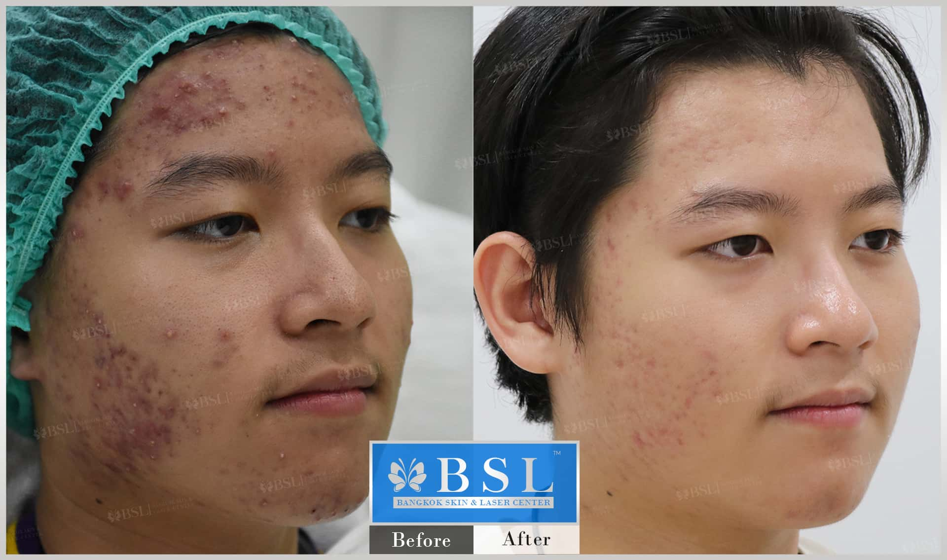 before-after-results-acne-199