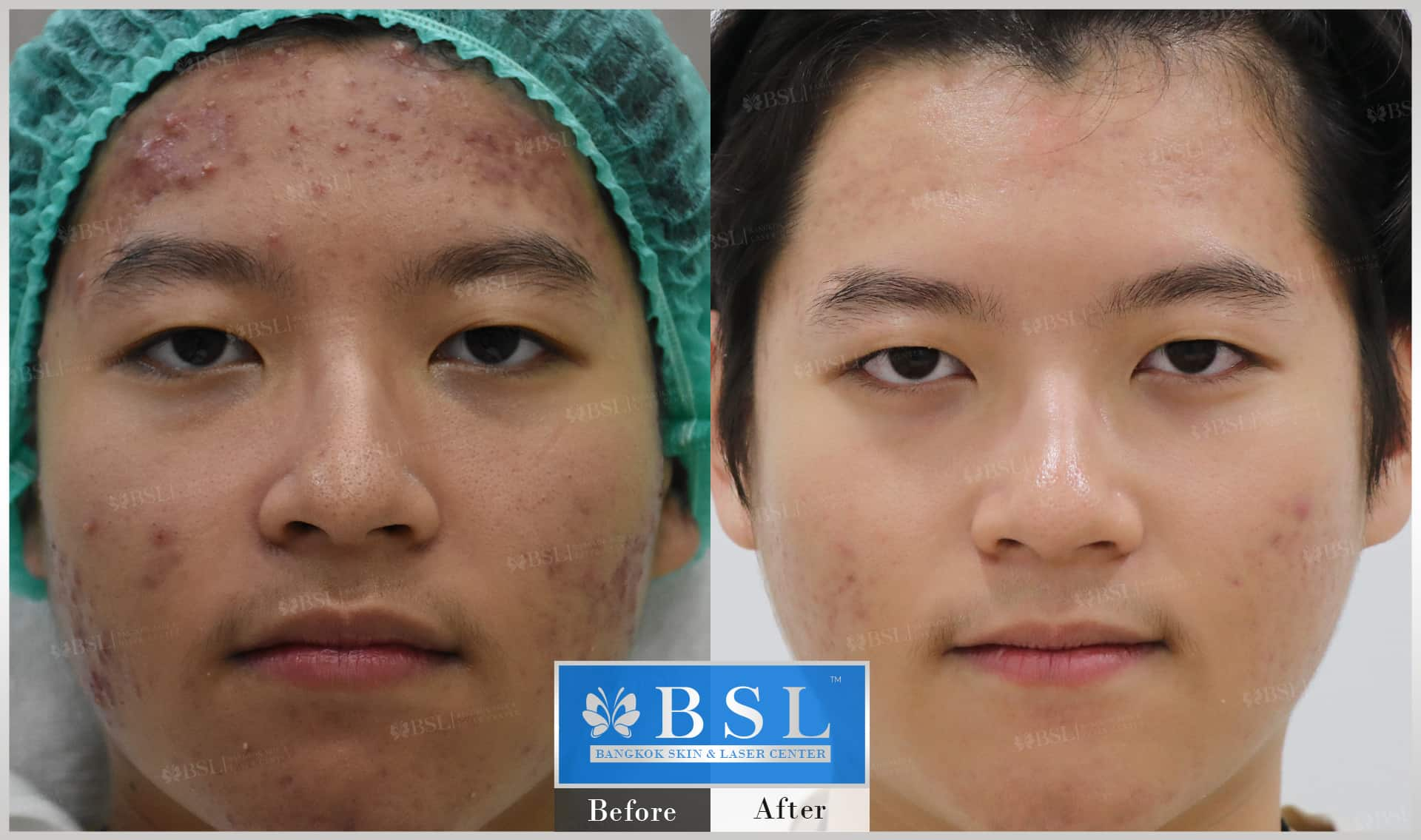 before-after-results-acne-200