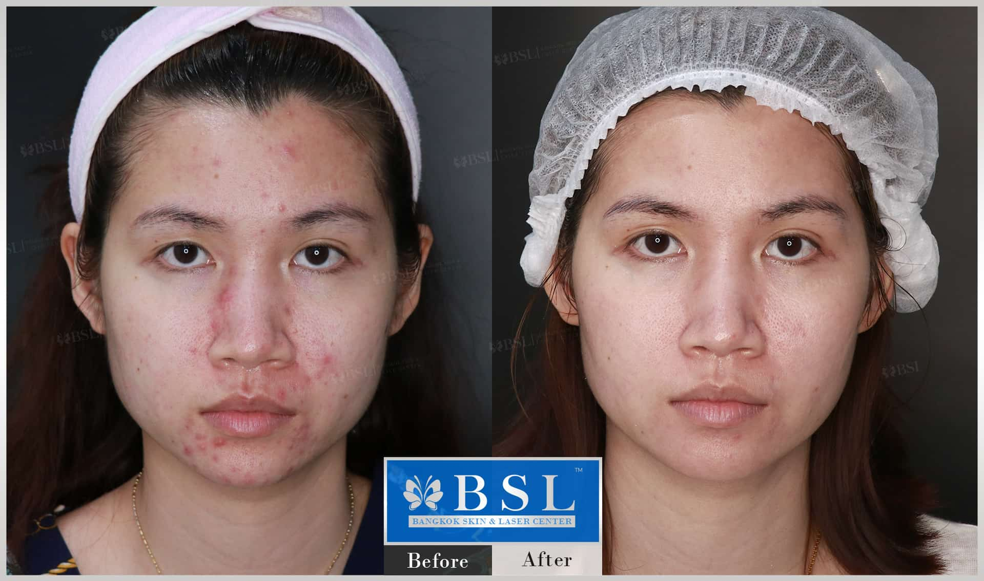 before-after-results-acne-201