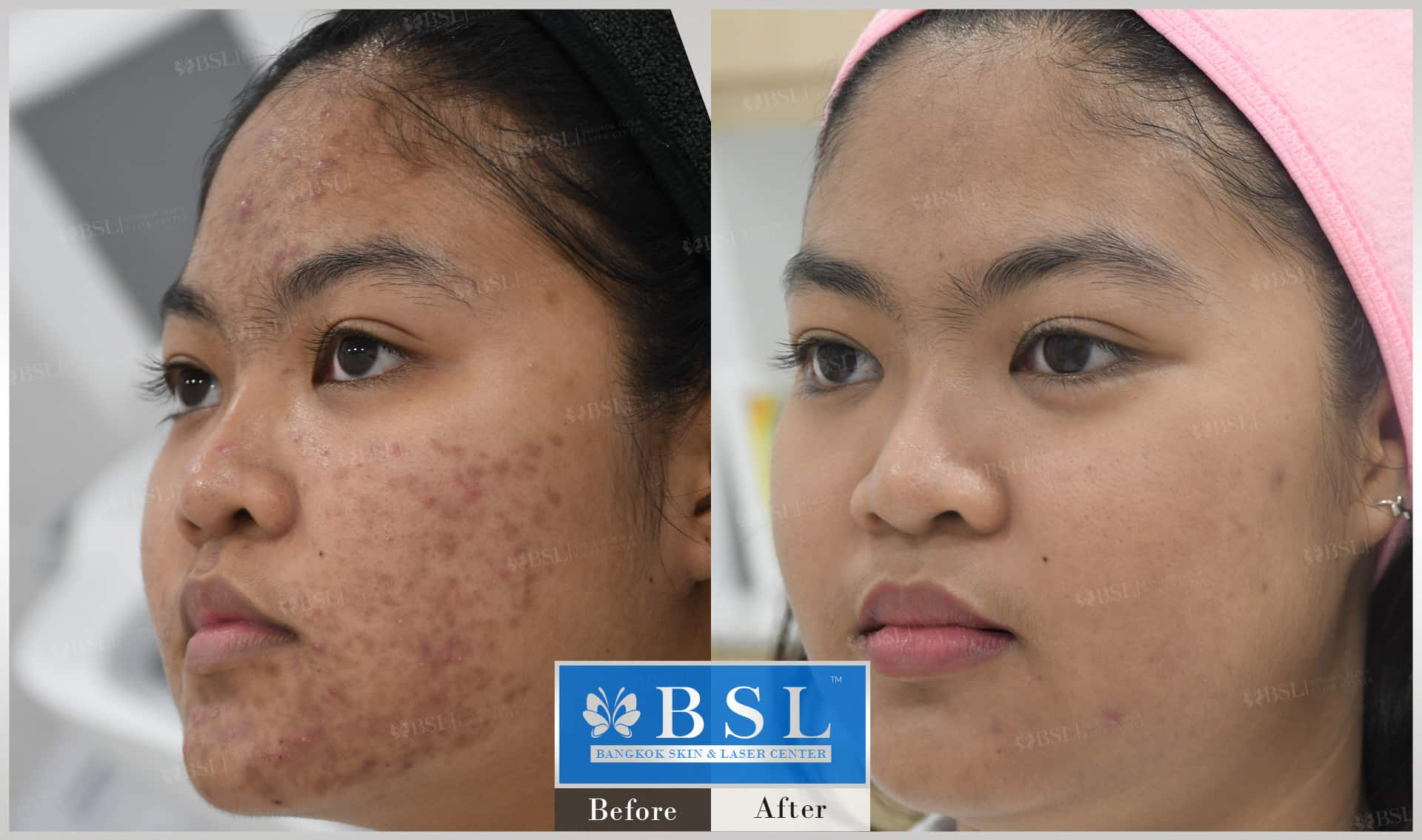 before-after-results-acne-202