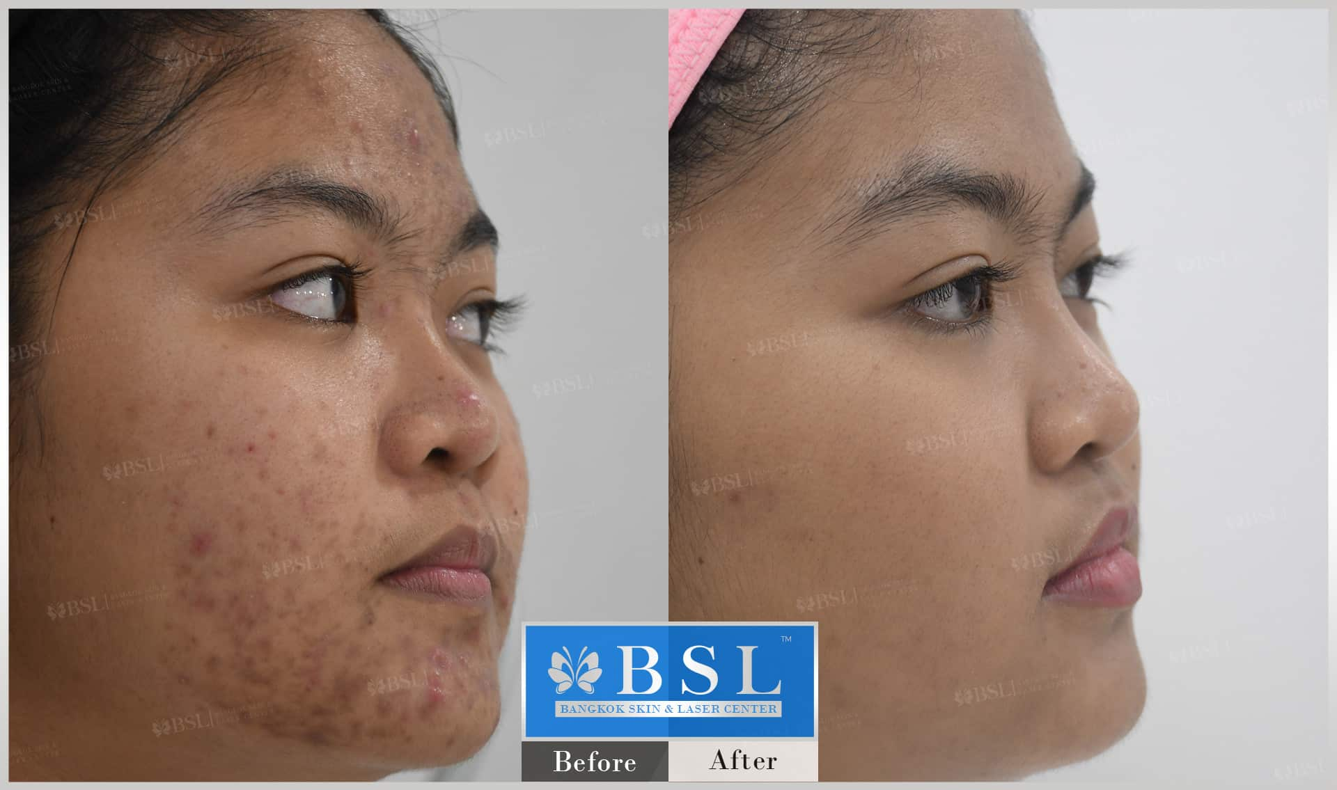 before-after-results-acne-203