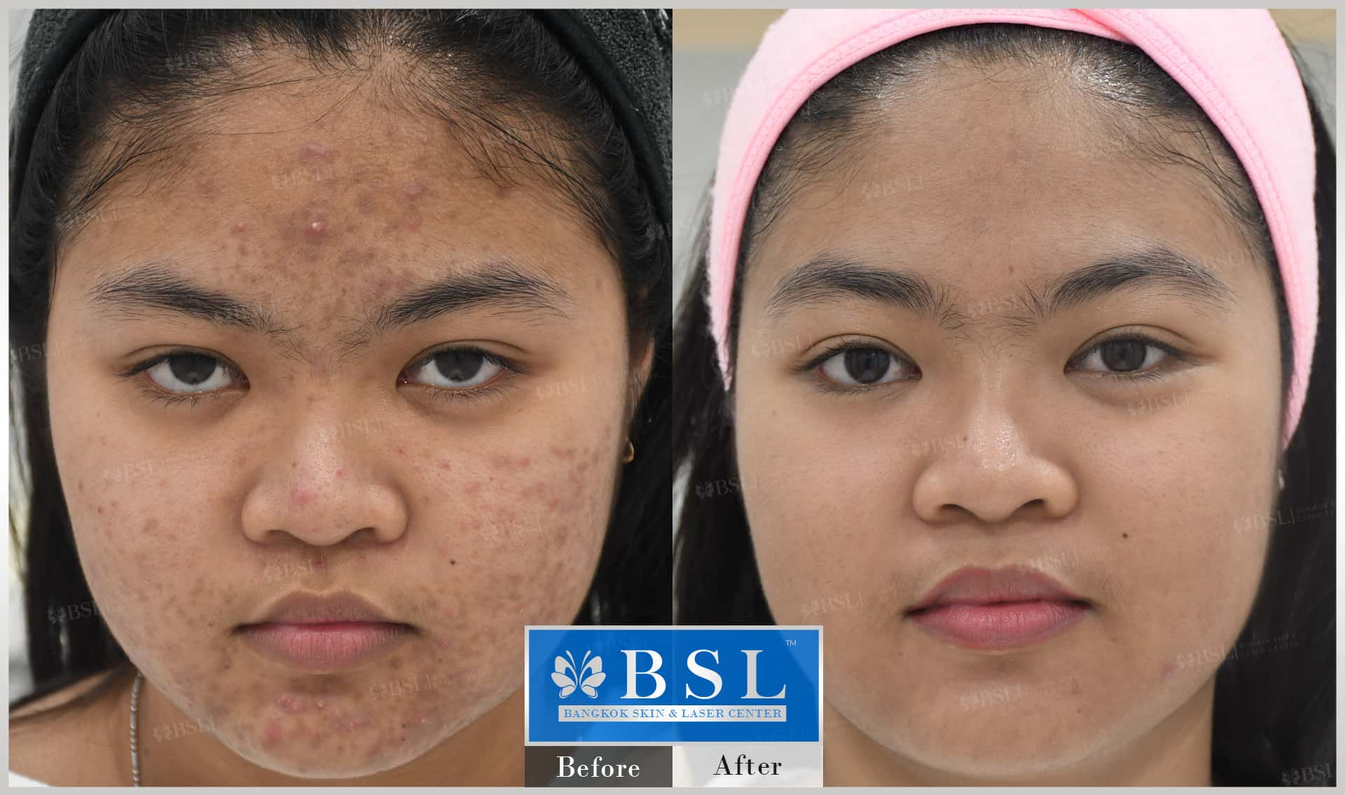 before-after-results-acne-204
