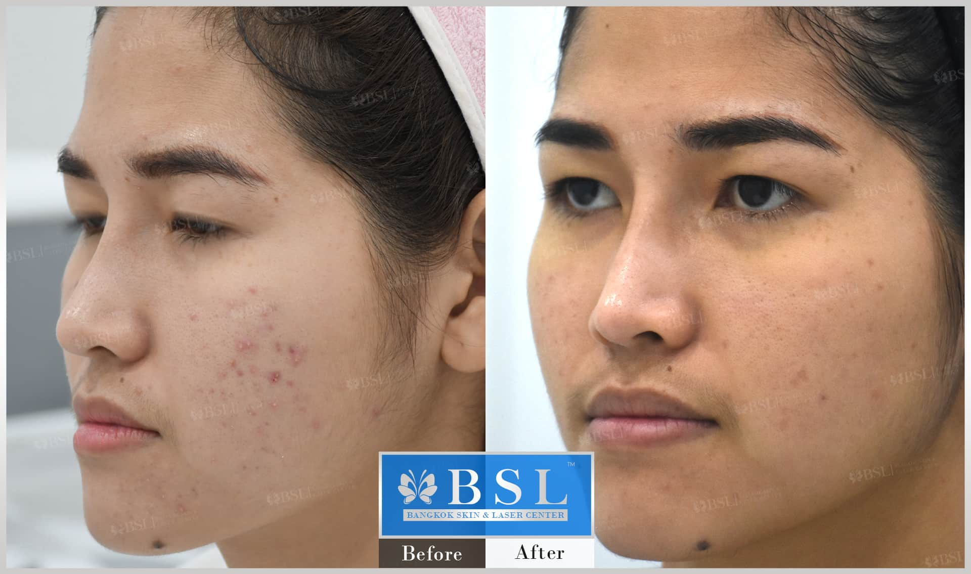 before-after-results-acne-205