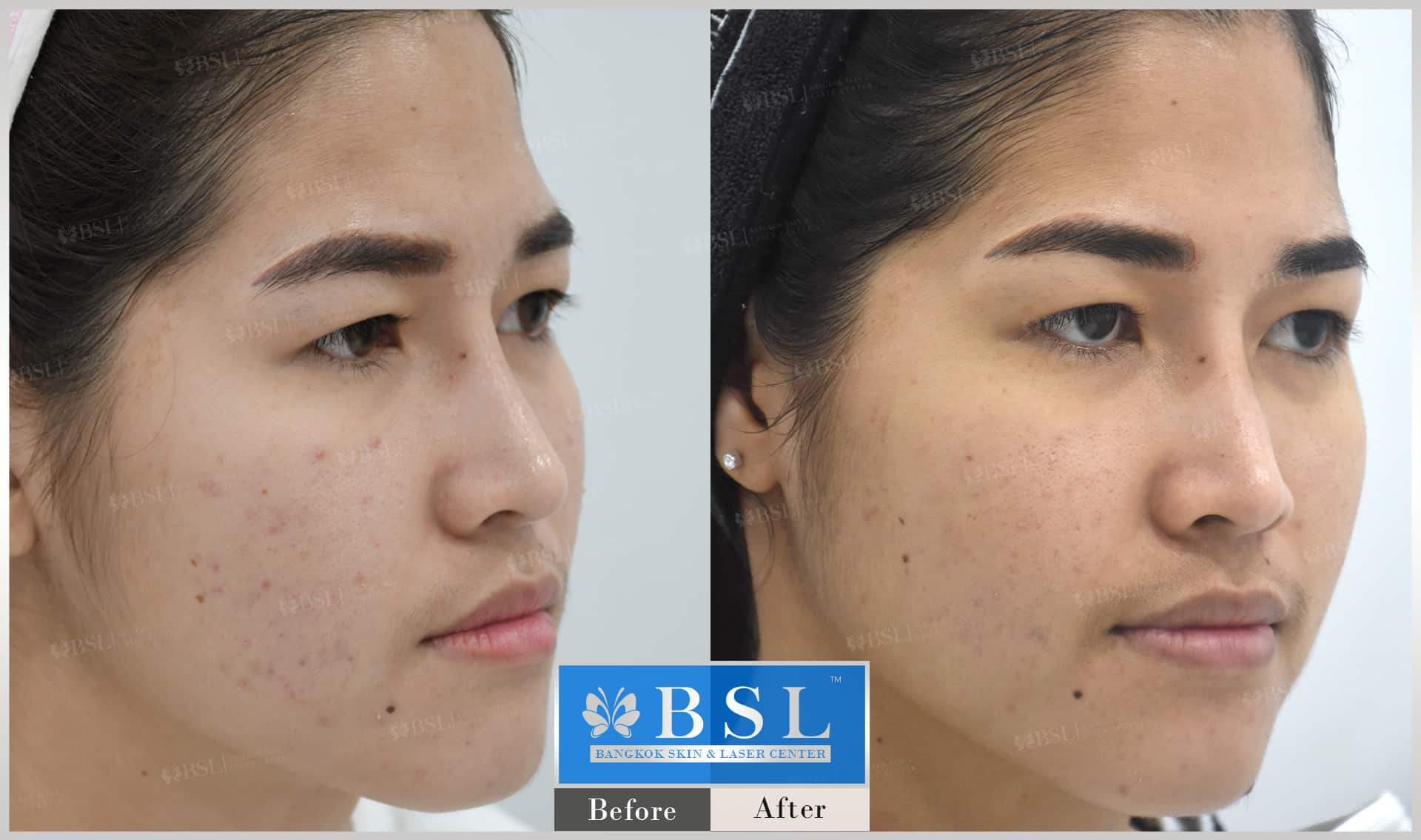 before-after-results-acne-206