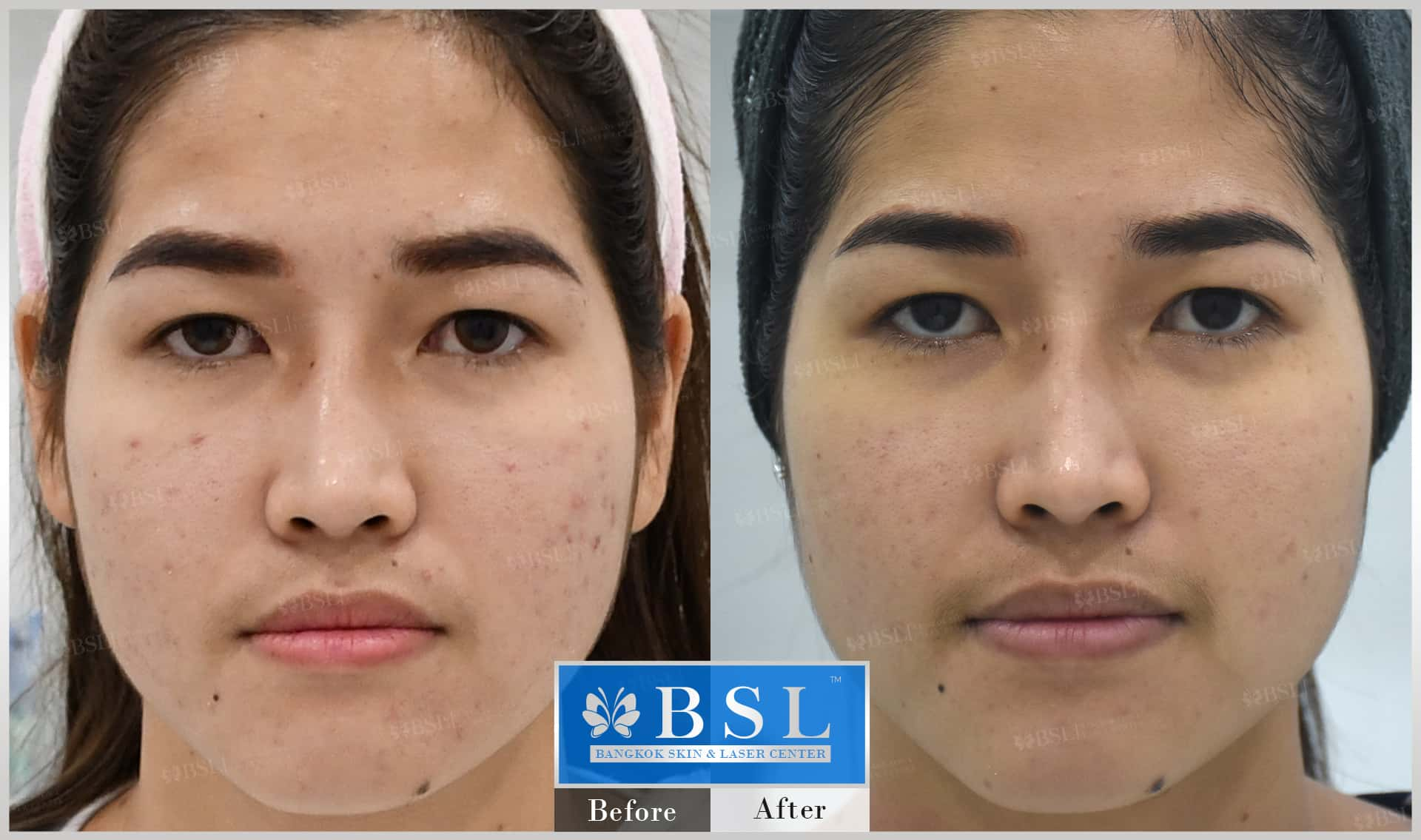 before-after-results-acne-207