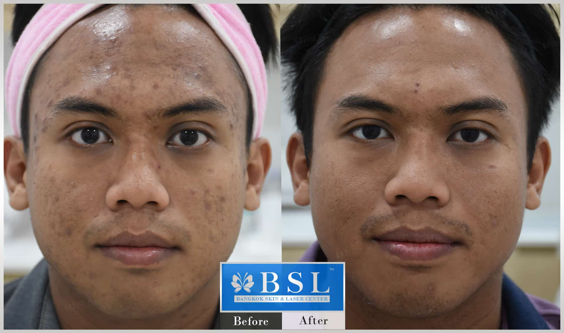 before-after-results-acne-208