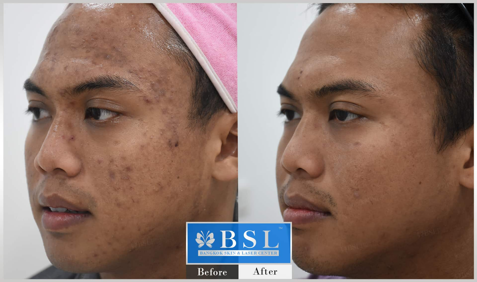 before-after-results-acne-209