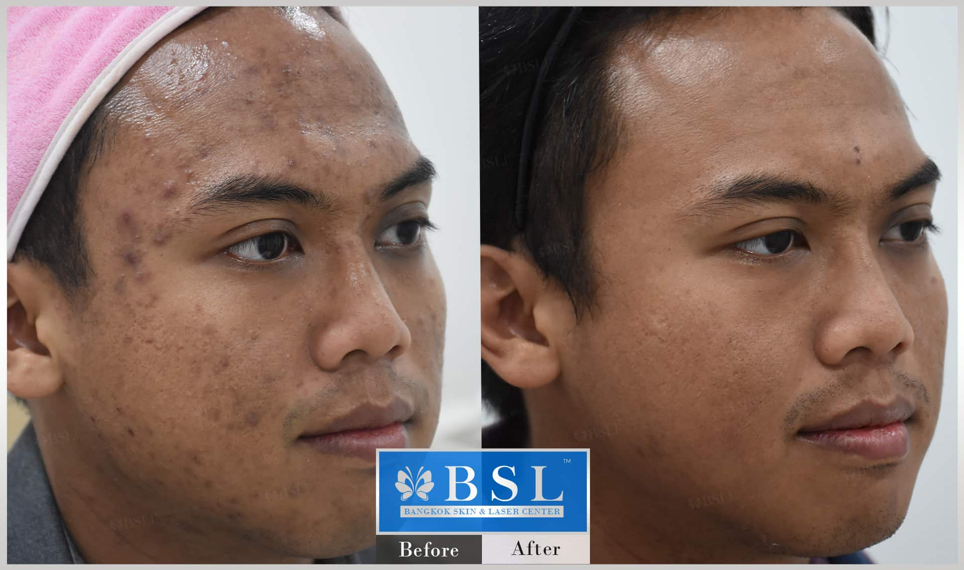 before-after-results-acne-210