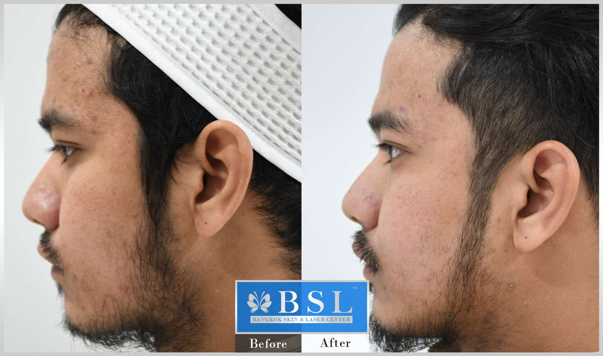 before-after-results-acne-211