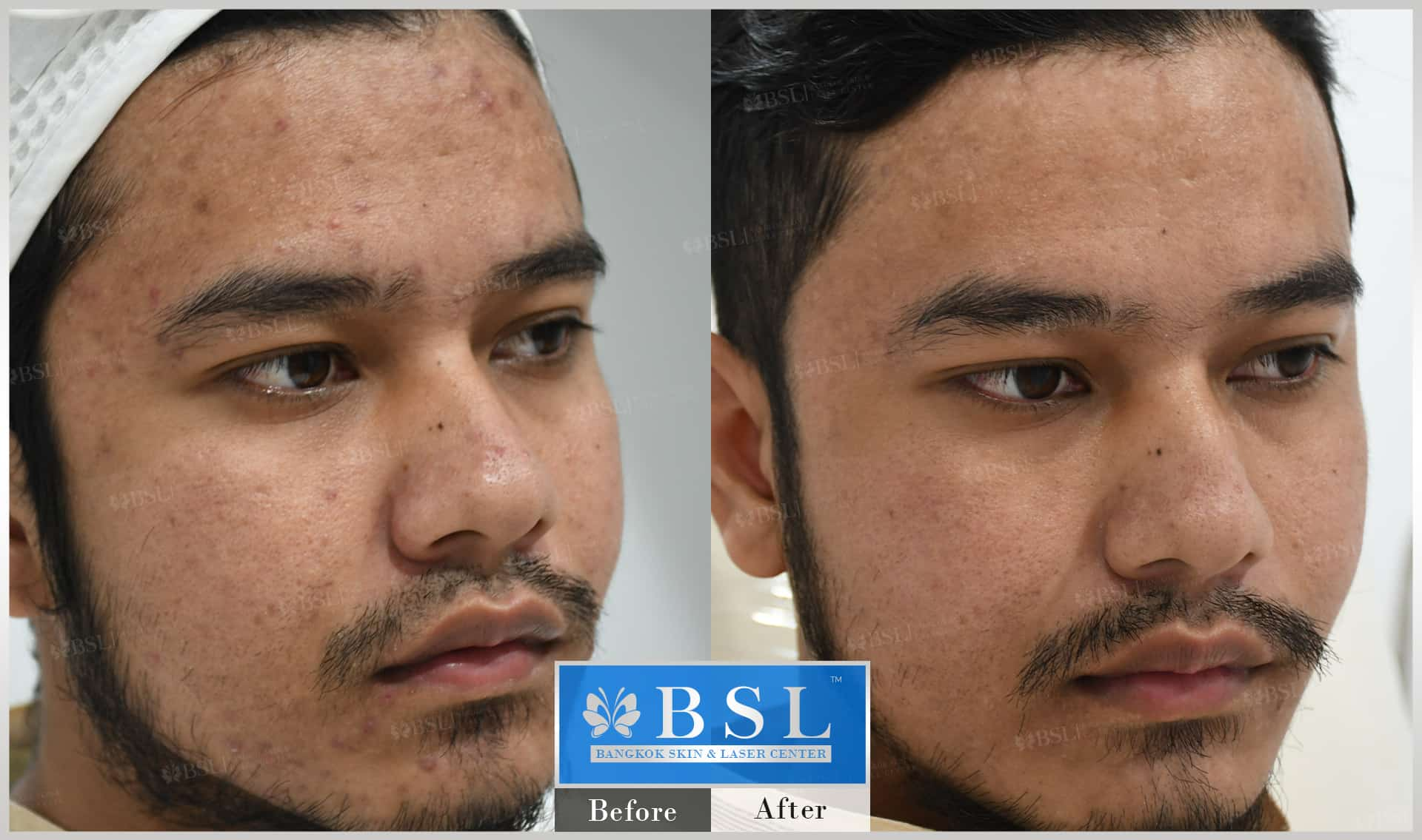 before-after-results-acne-212