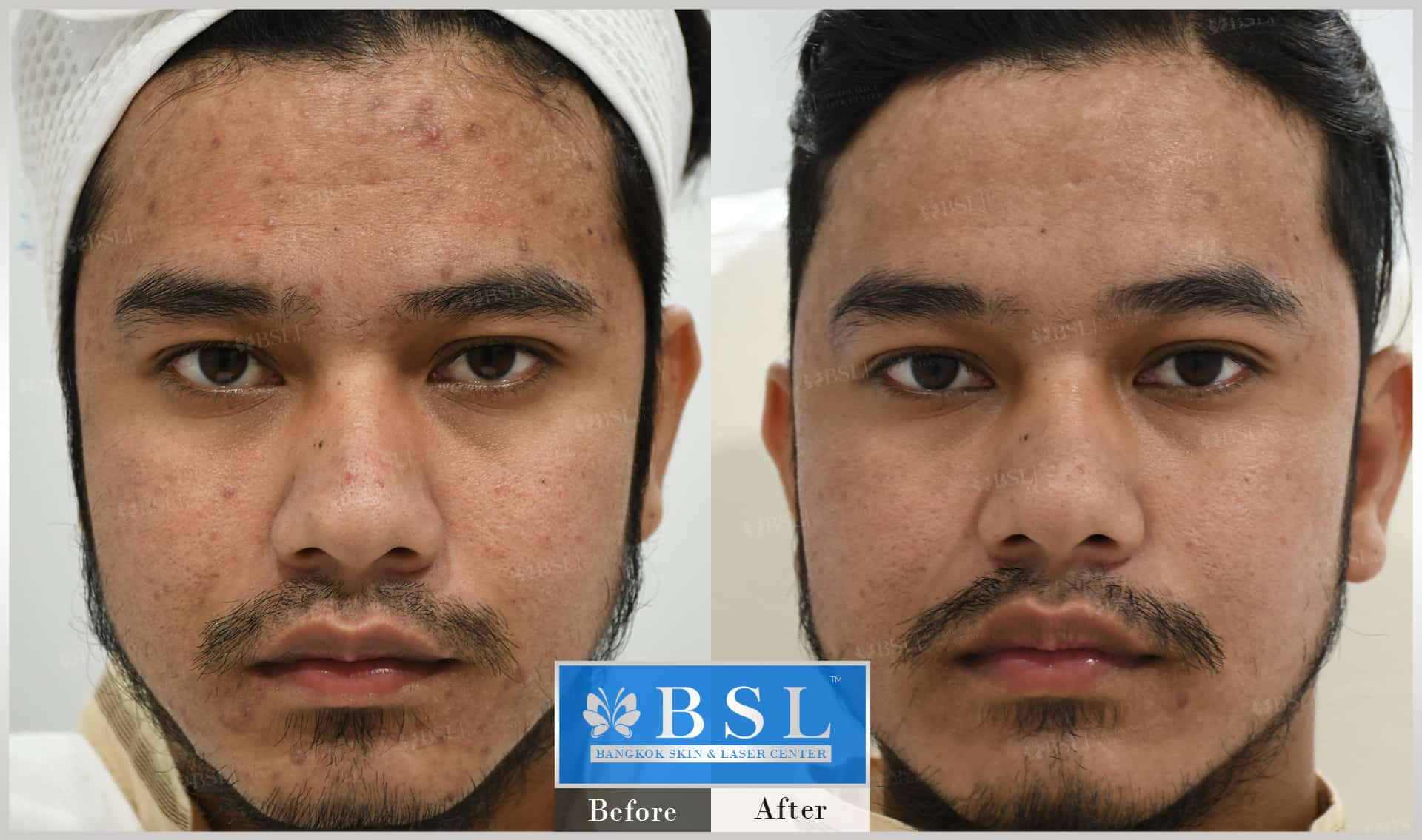 before-after-results-acne-213