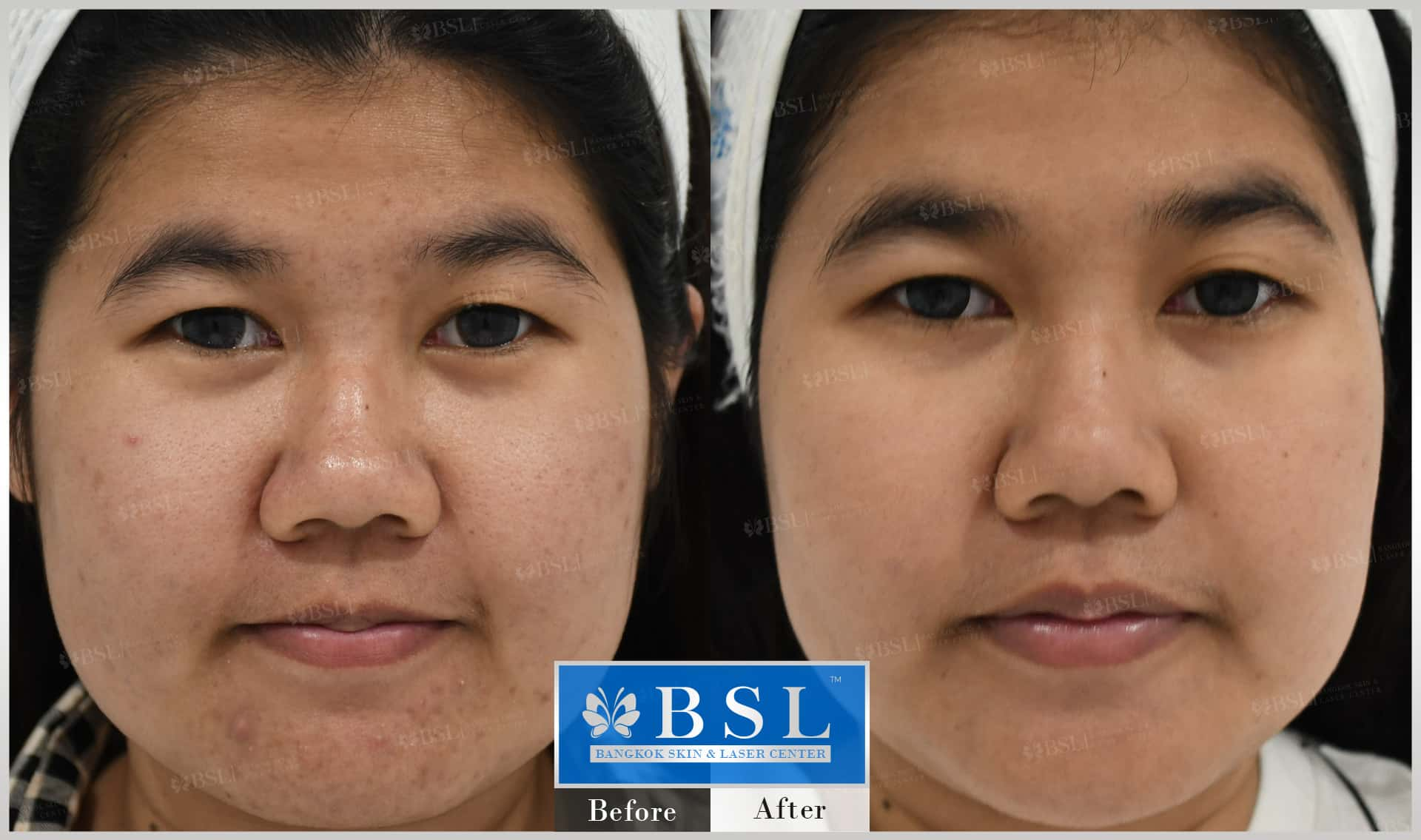 before-after-results-acne-214