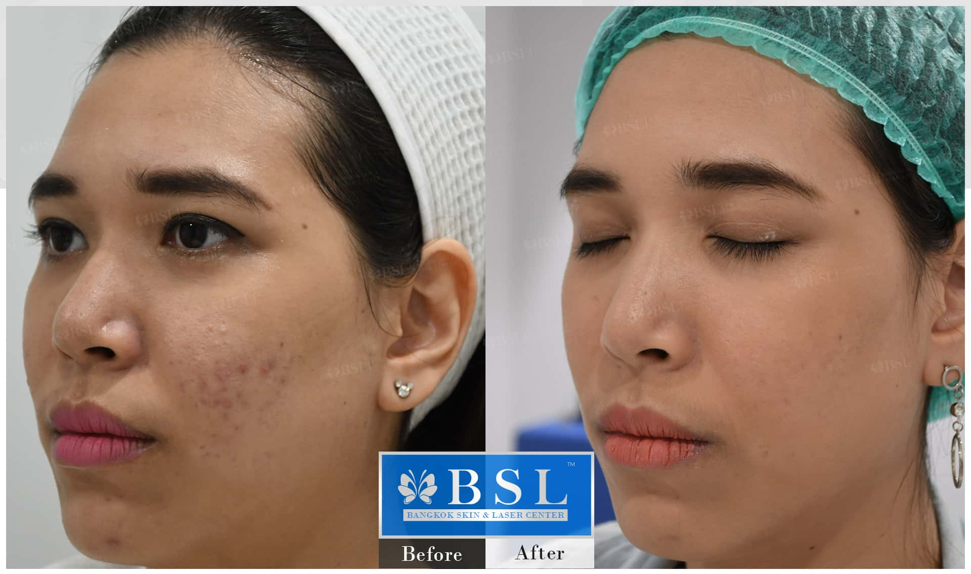 before-after-results-acne-215