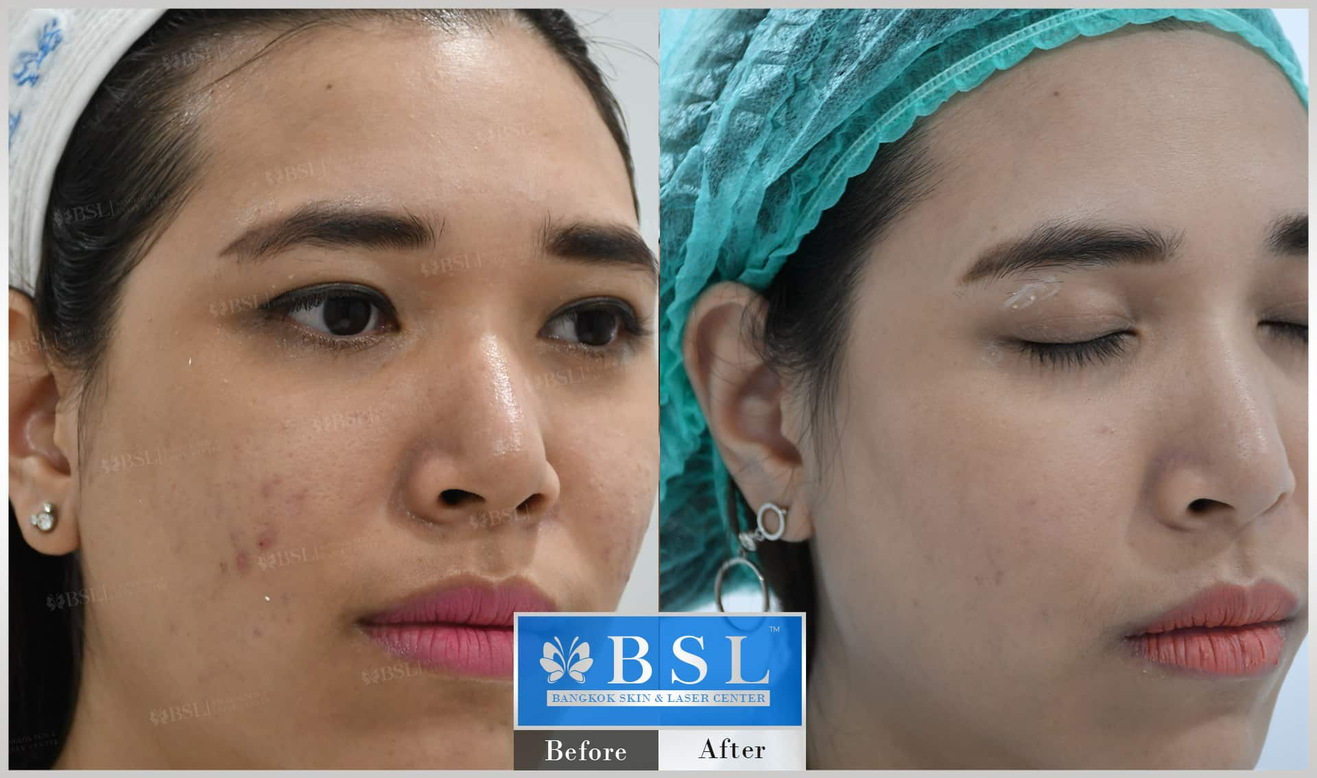 before-after-results-acne-216