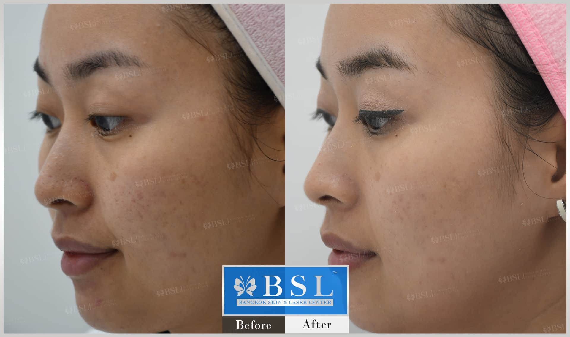 before-after-results-acne-218