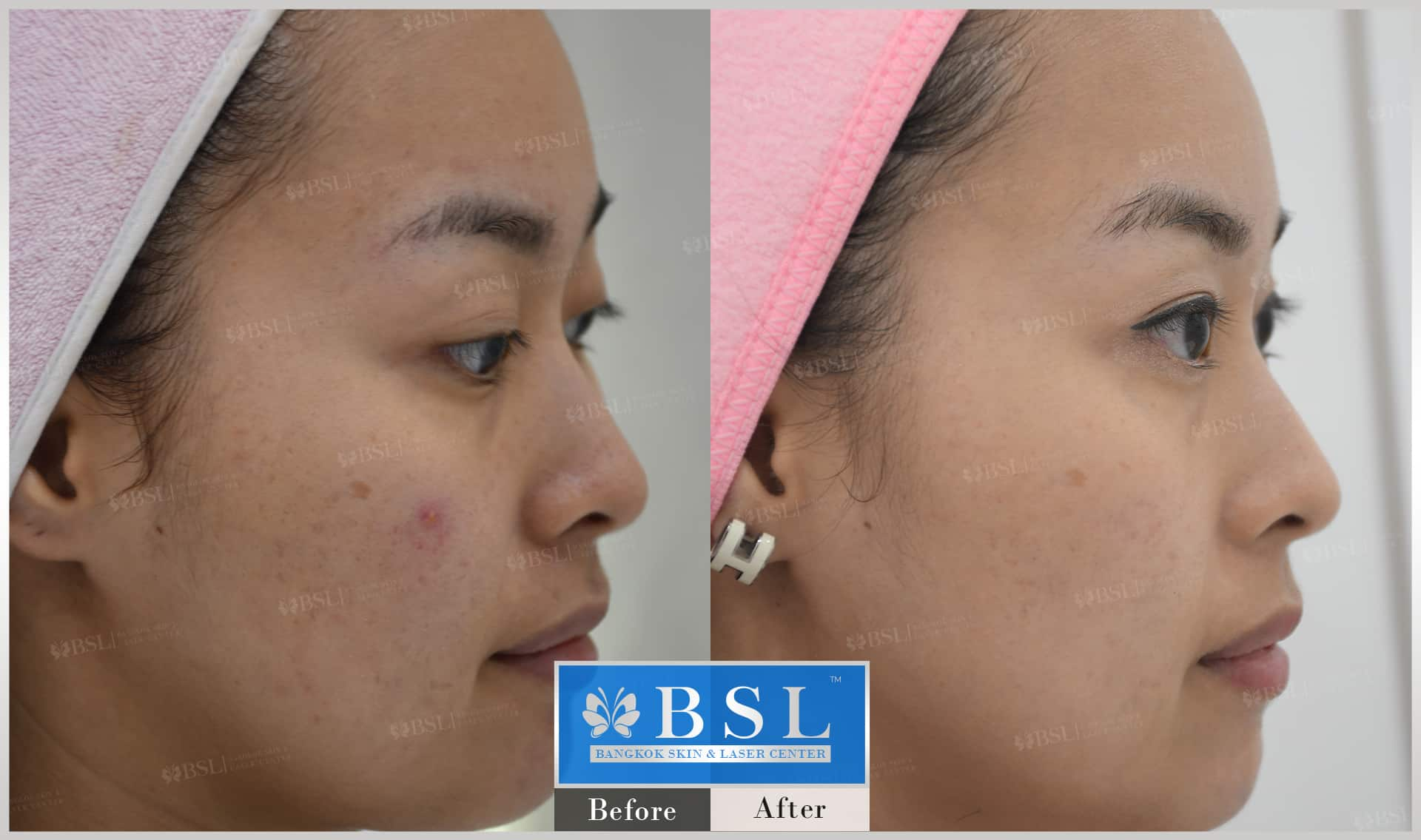 before-after-results-acne-219