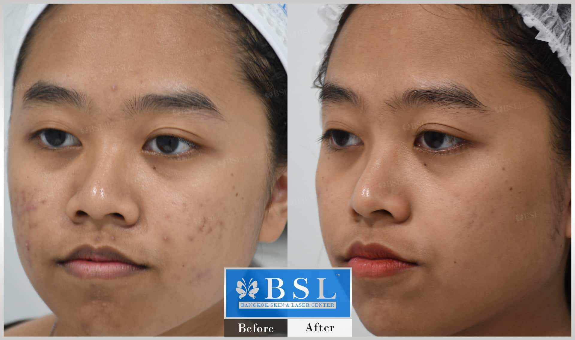 before-after-results-acne-221