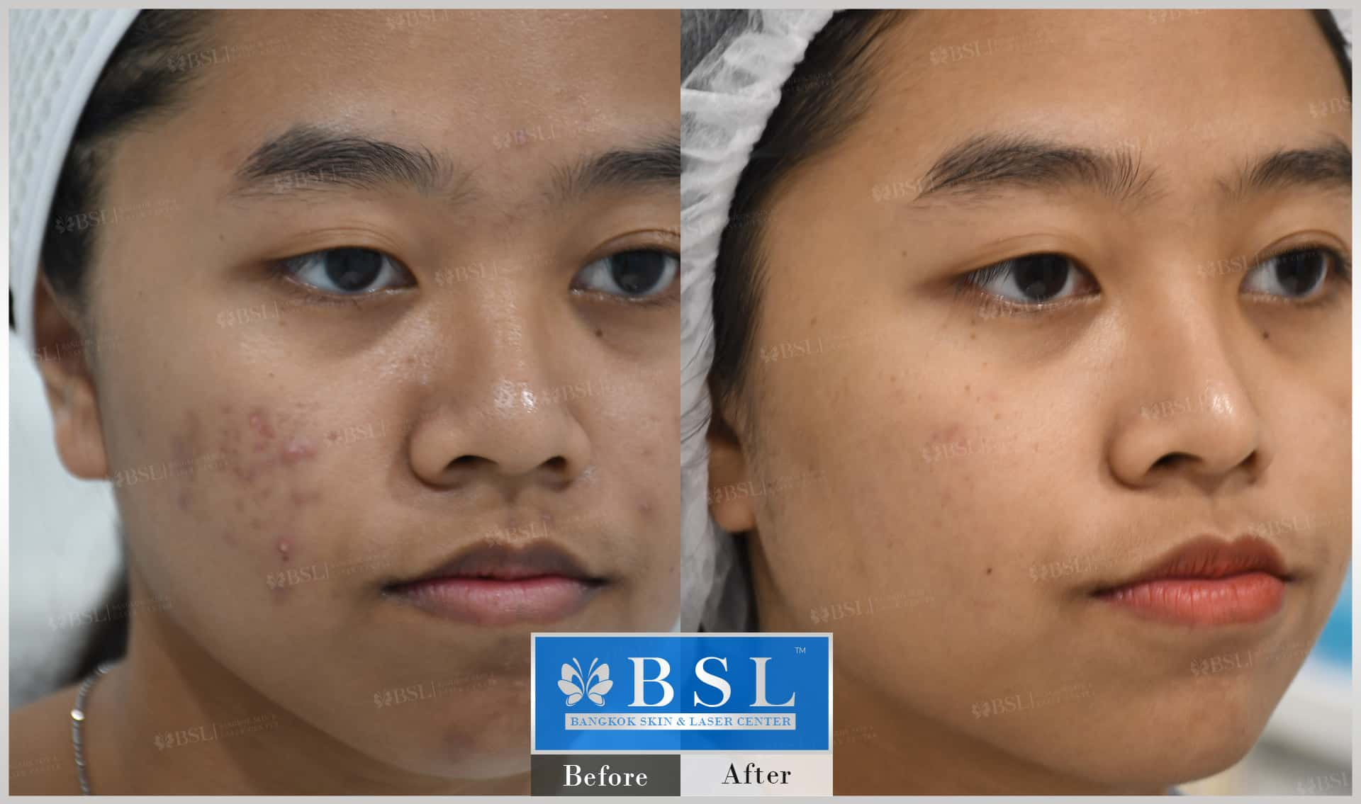 before-after-results-acne-222