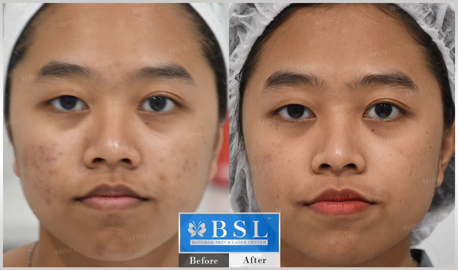 before-after-results-acne-223