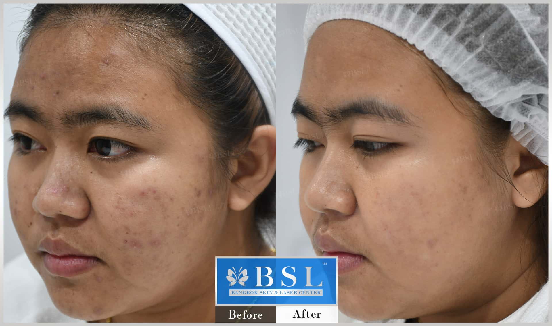 before-after-results-acne-224