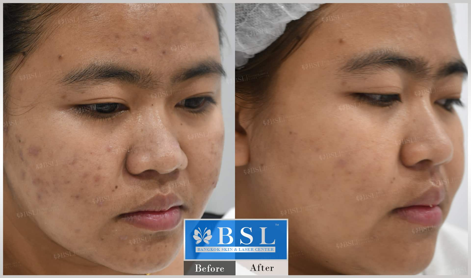 before-after-results-acne-225