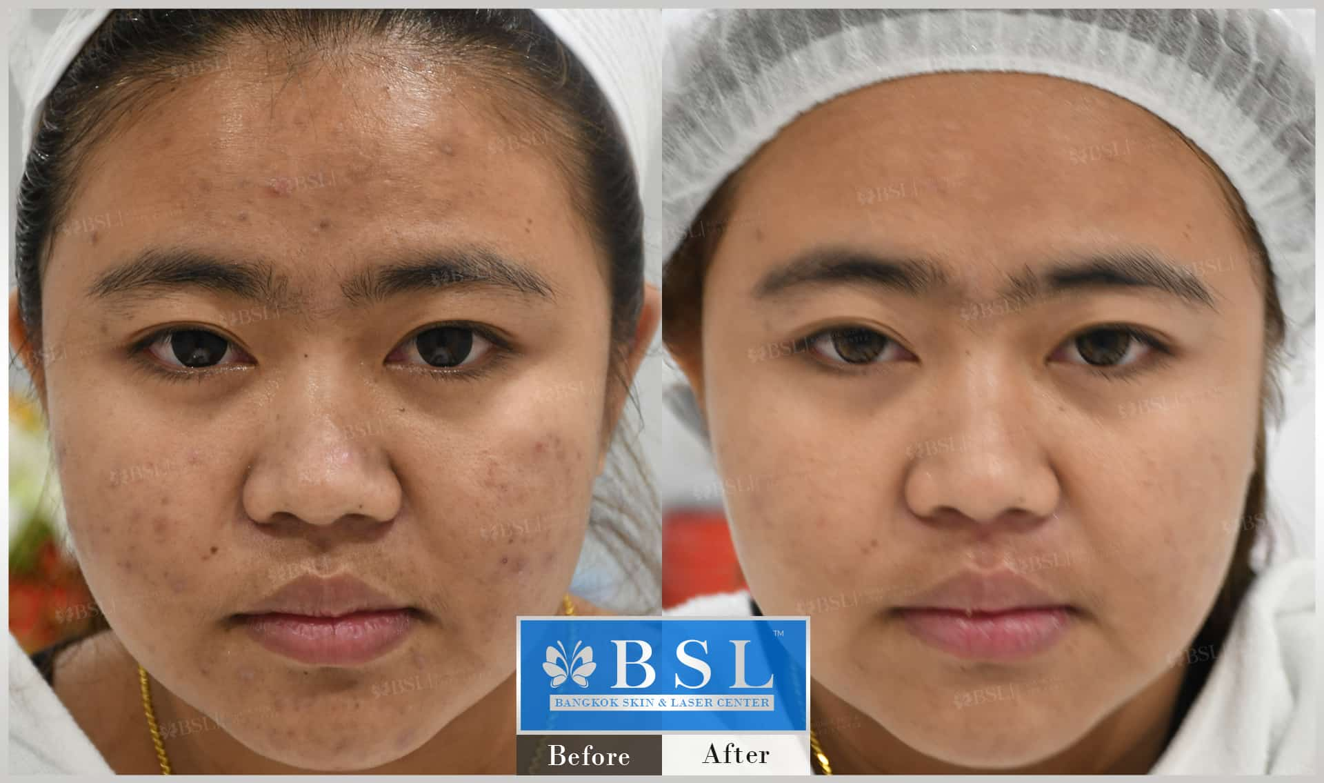 before-after-results-acne-226
