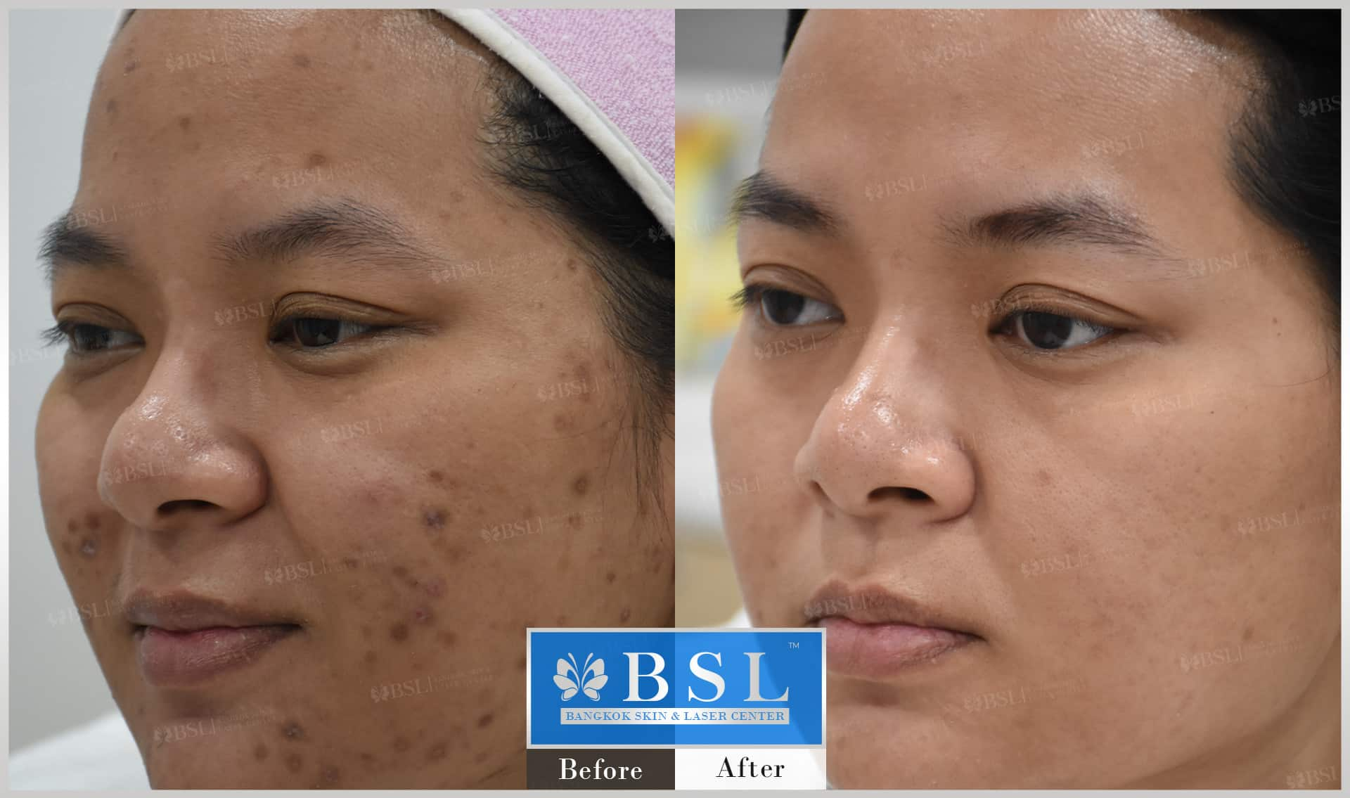 before-after-results-acne-227