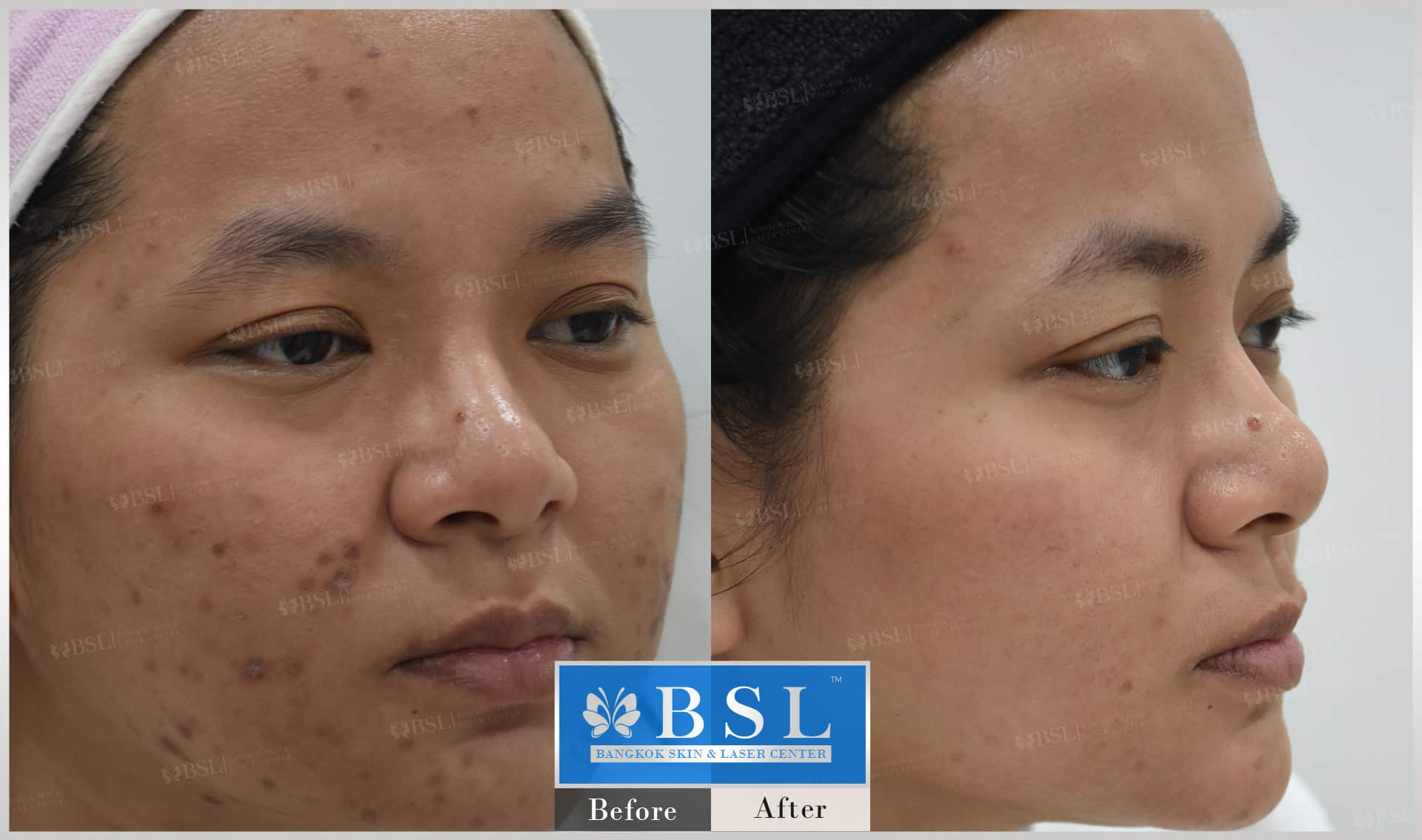 before-after-results-acne-228