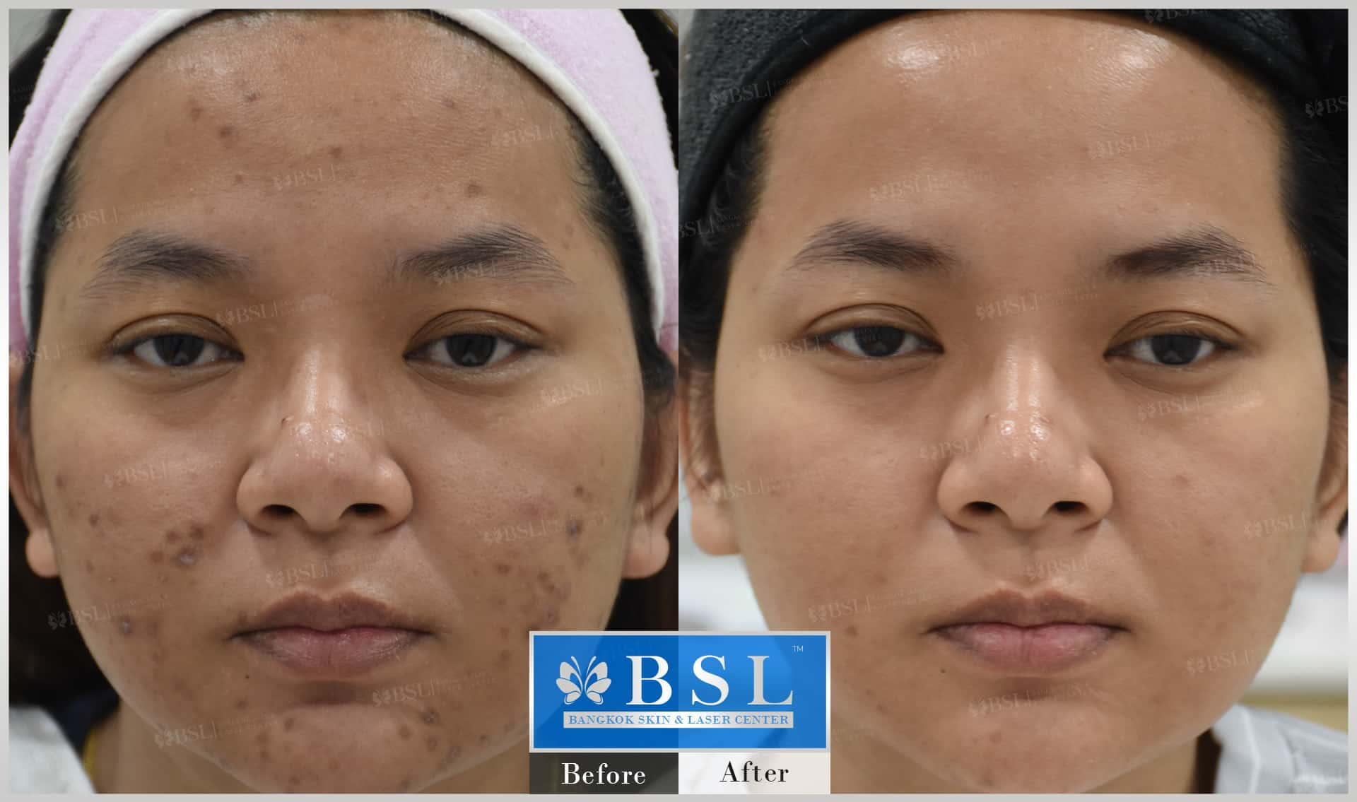 before-after-results-acne-229