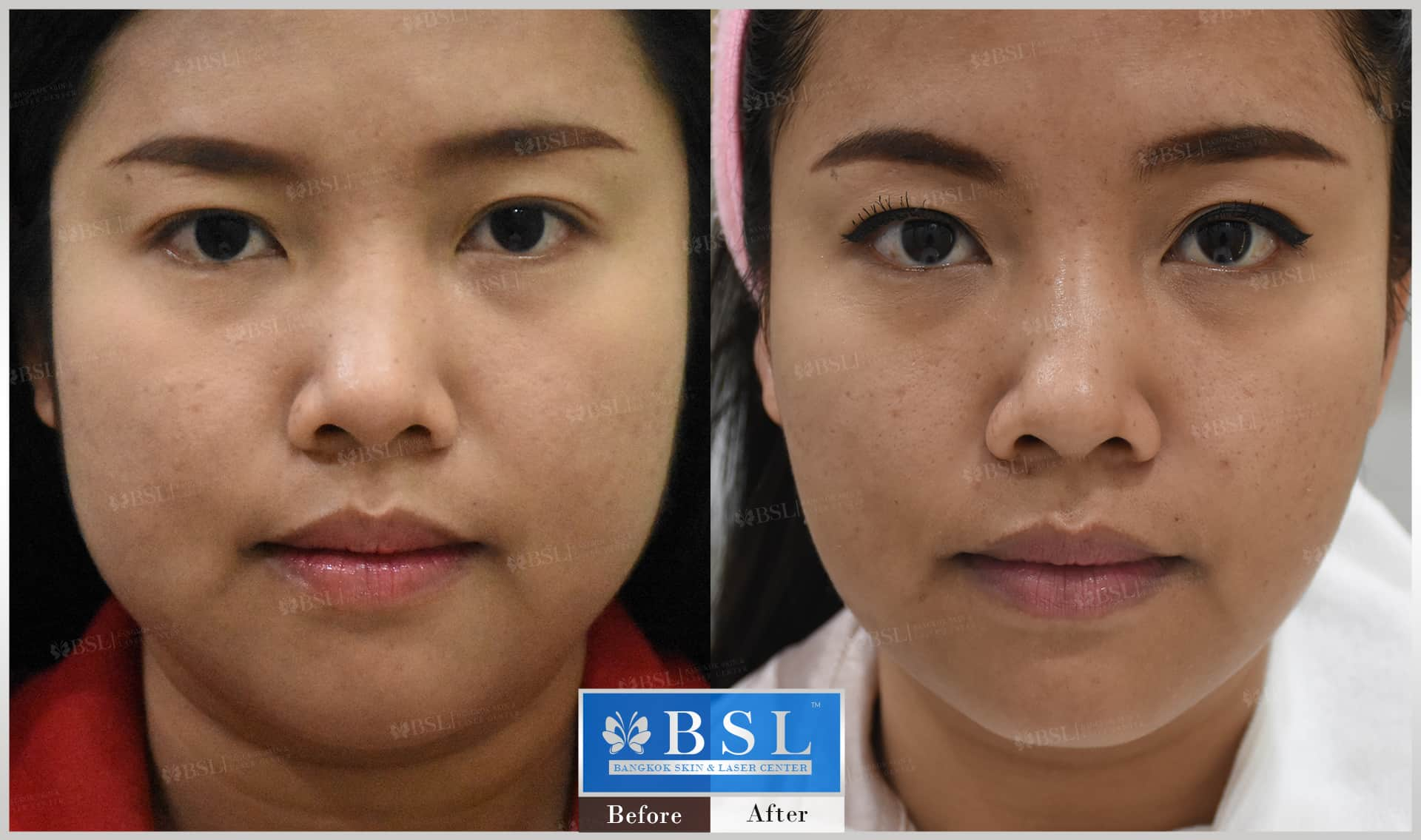 before-after-results-chin-augmentation-001