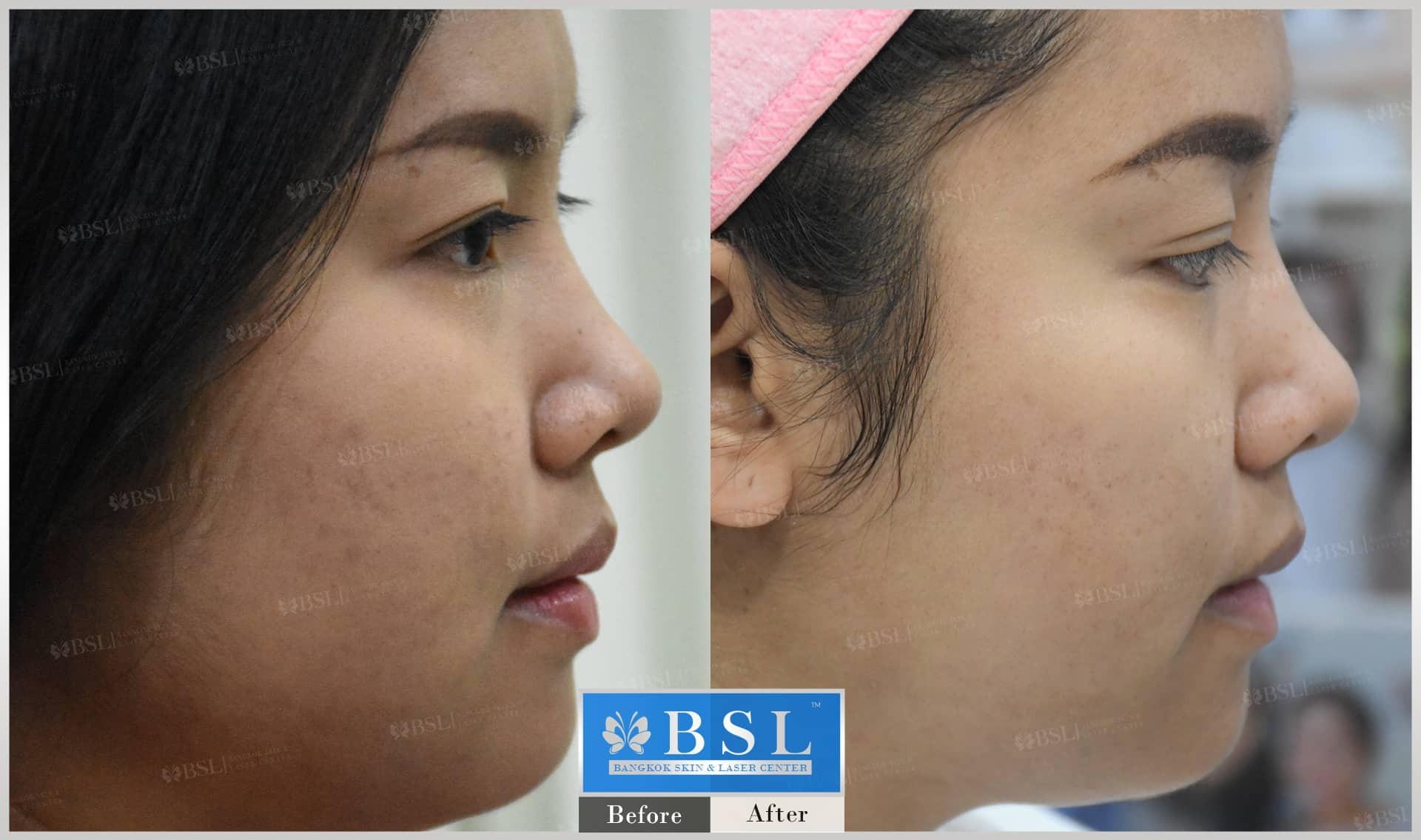 before-after-results-chin-augmentation-002
