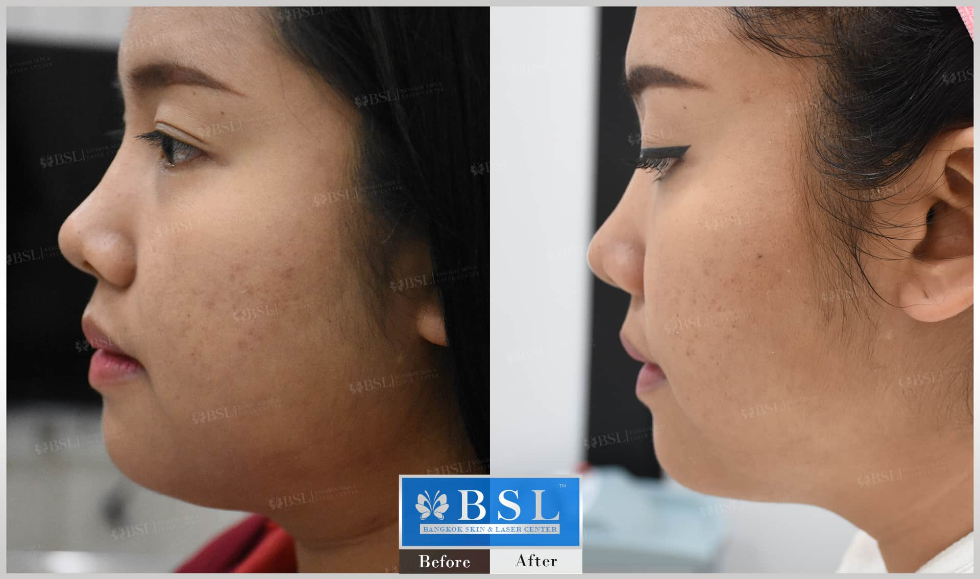 before-after-results-chin-augmentation-003