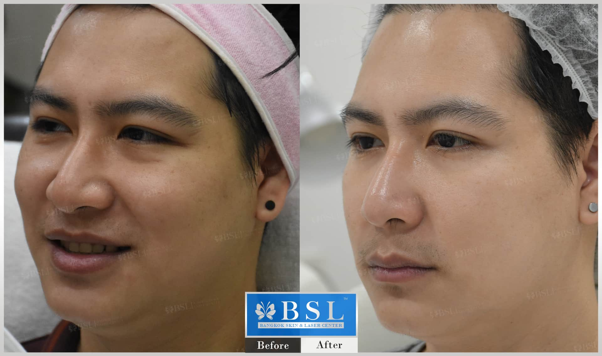 before-after-results-chin-augmentation-004