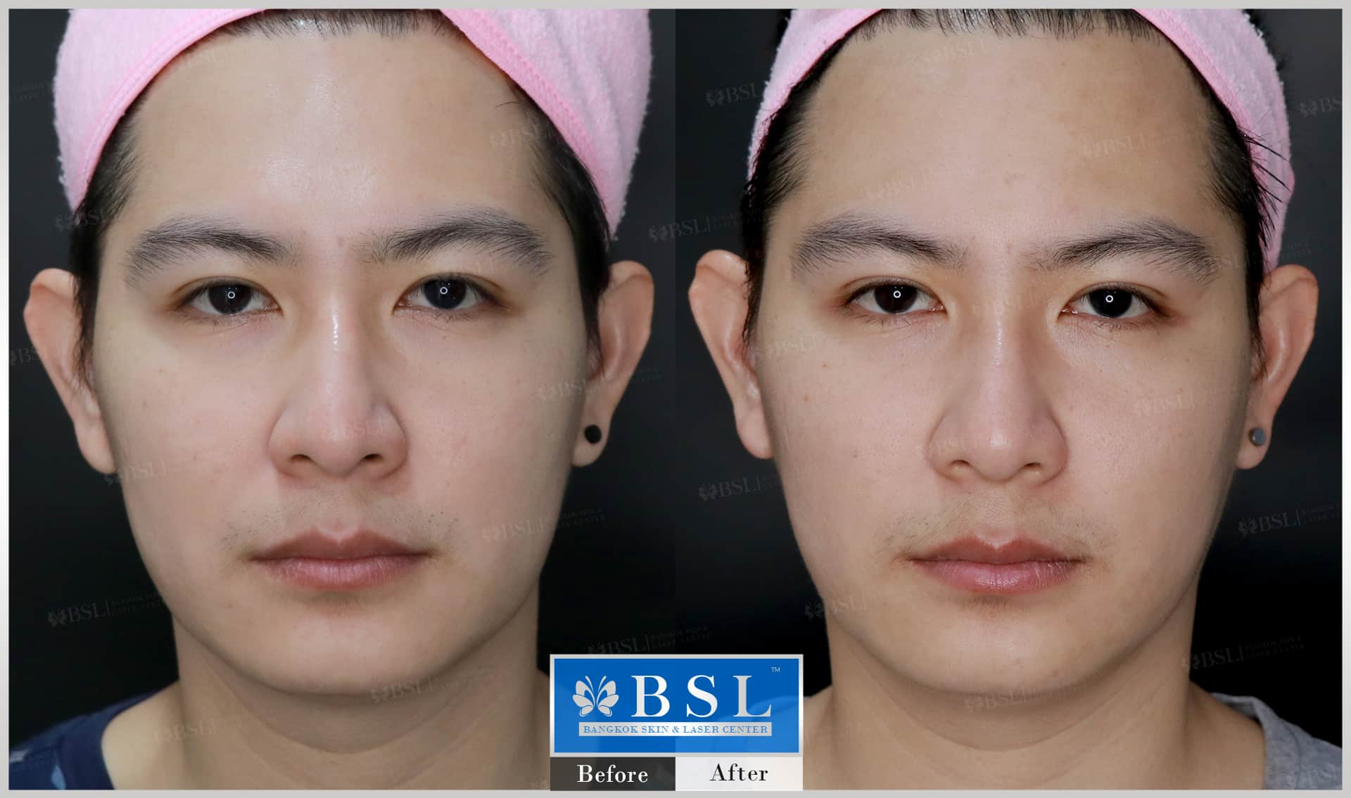 before-after-results-chin-augmentation-006