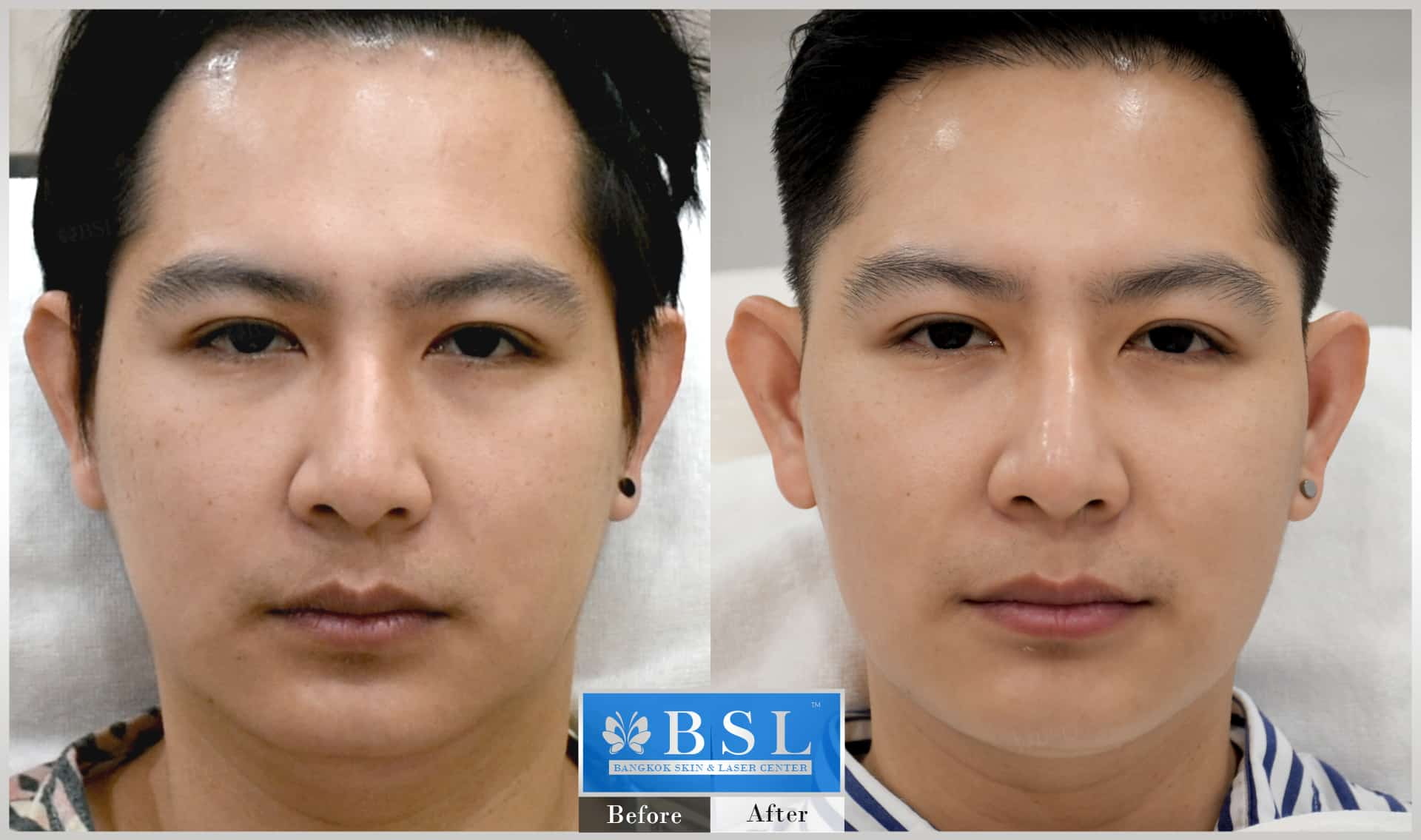 before-after-results-chin-augmentation-007