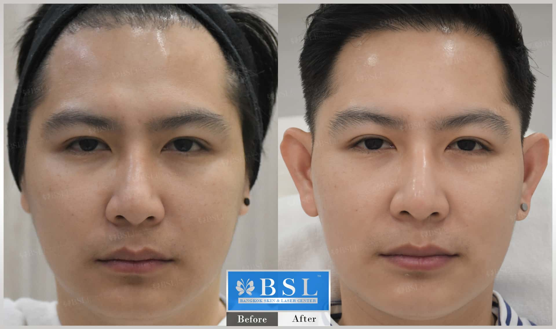 before-after-results-chin-augmentation-008