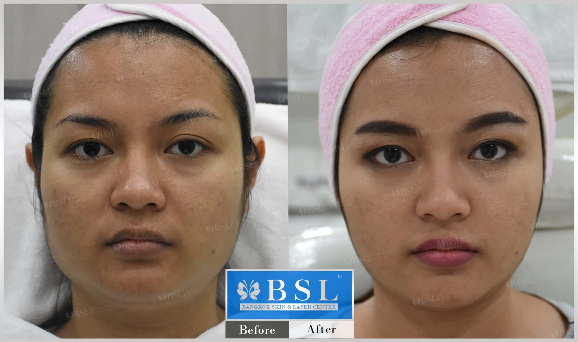 before-after-results-chin-augmentation-009