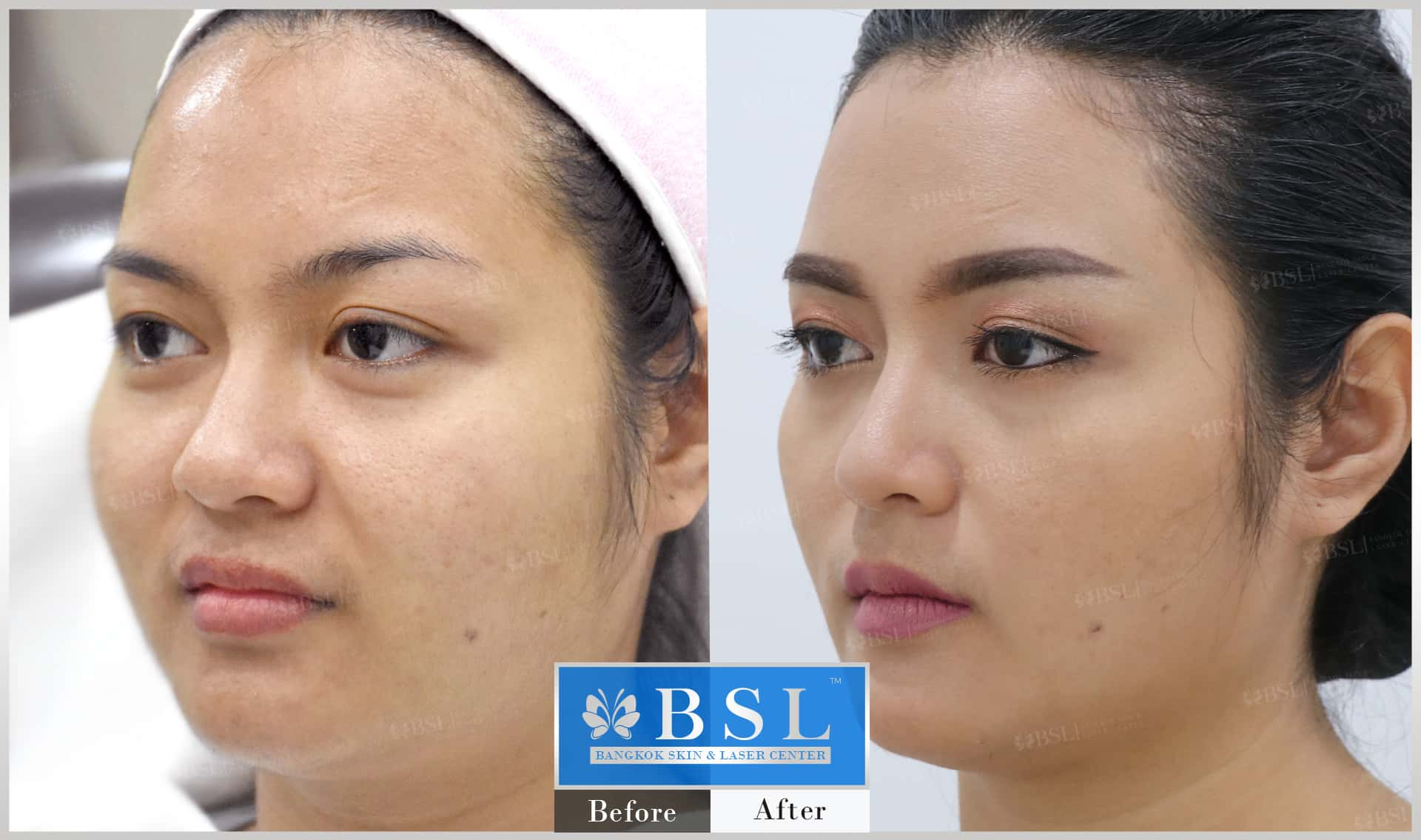 before-after-results-chin-augmentation-010
