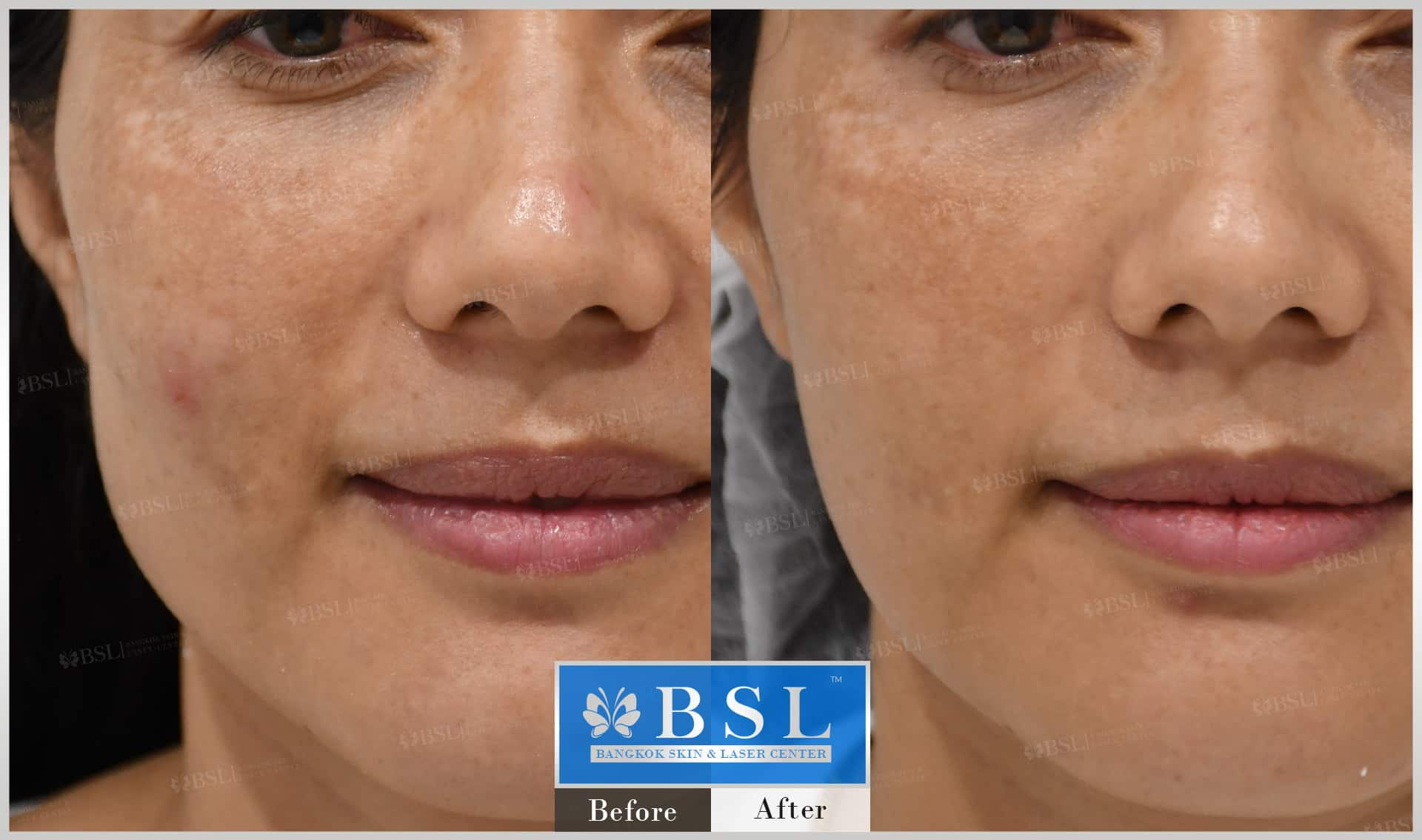 before-after-results-chin-augmentation-011