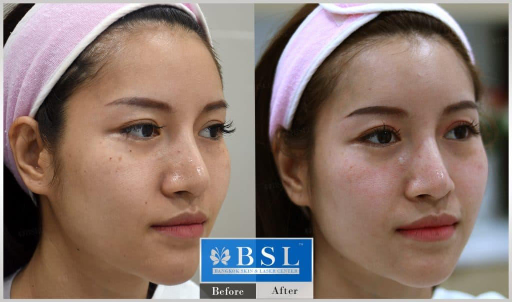 before-after-results-dull-face-002
