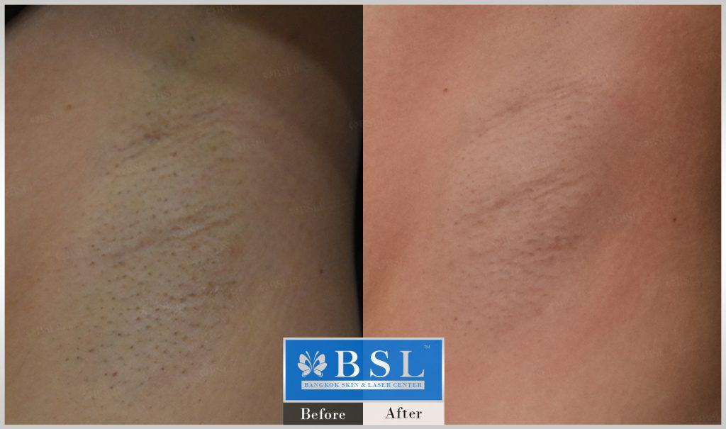 before-after-results-hair-removal-001