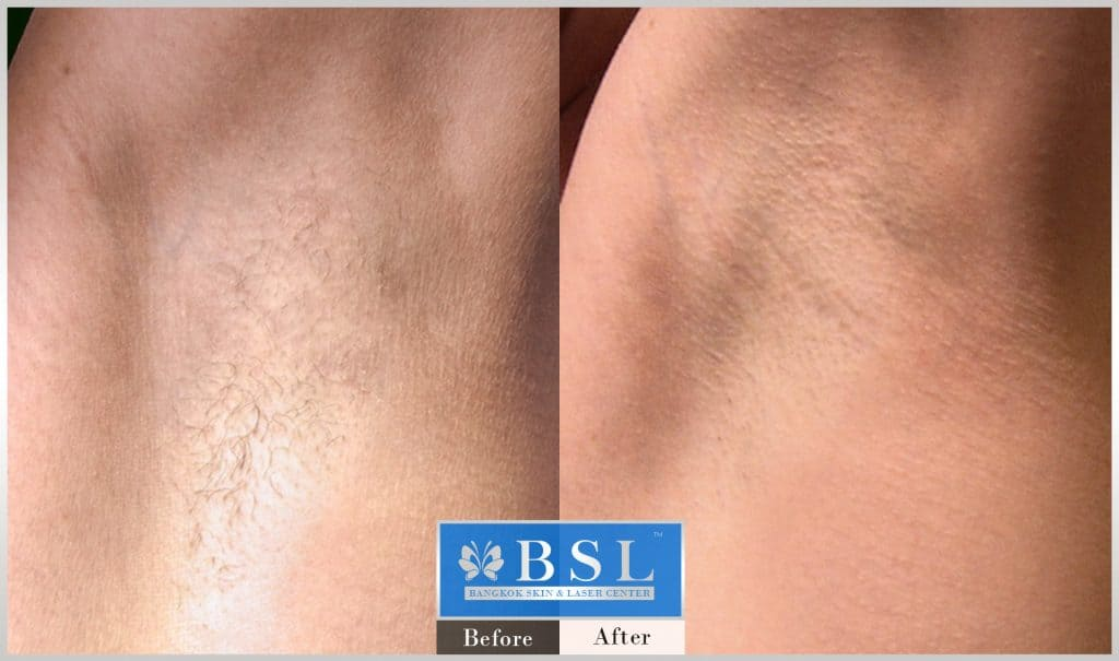 before-after-results-hair-removal-002