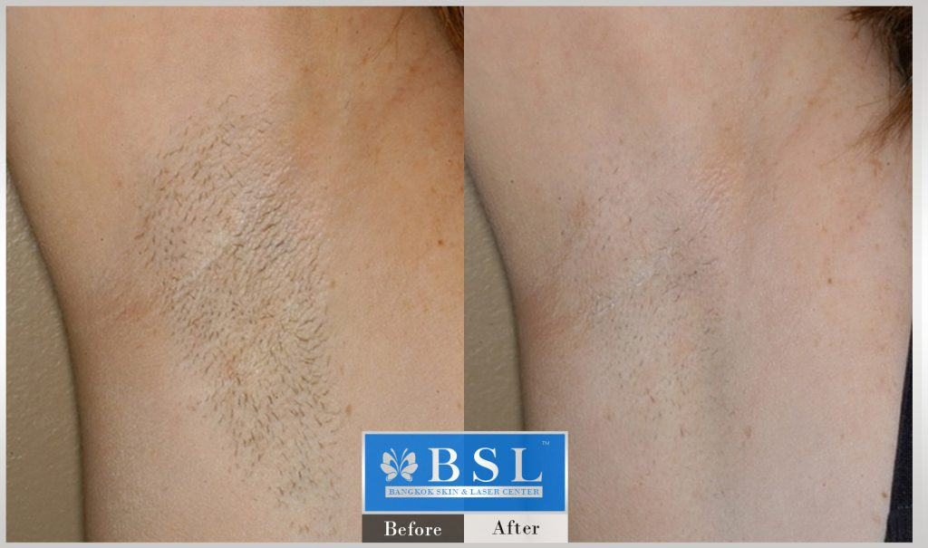 before-after-results-hair-removal-004
