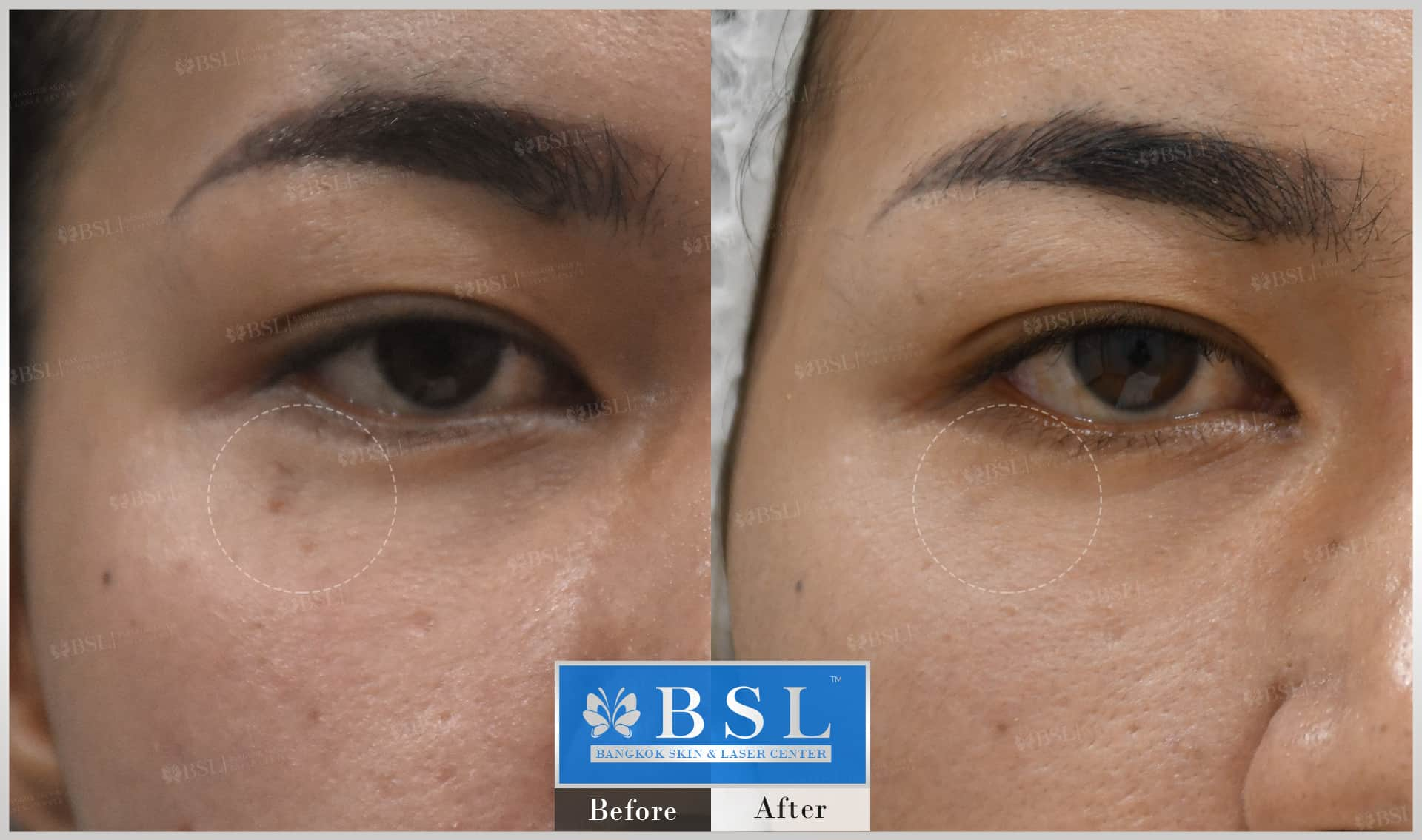 before-after-results-moles-003
