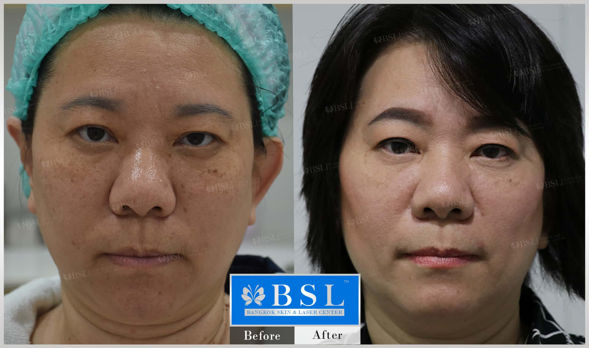 before-after-results-moles-004