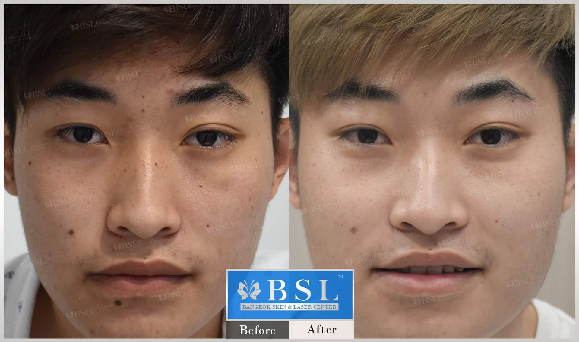 before-after-results-moles-006