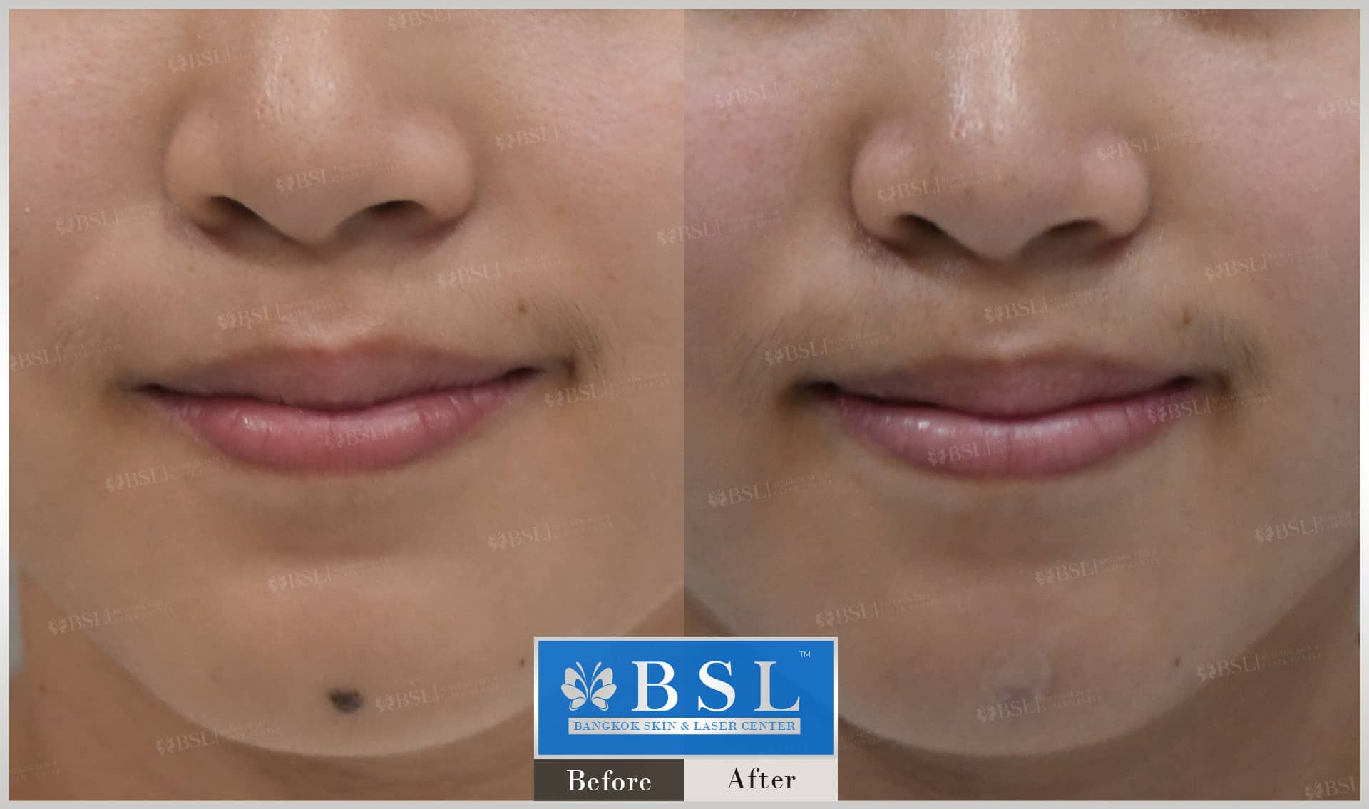 before-after-results-moles-013