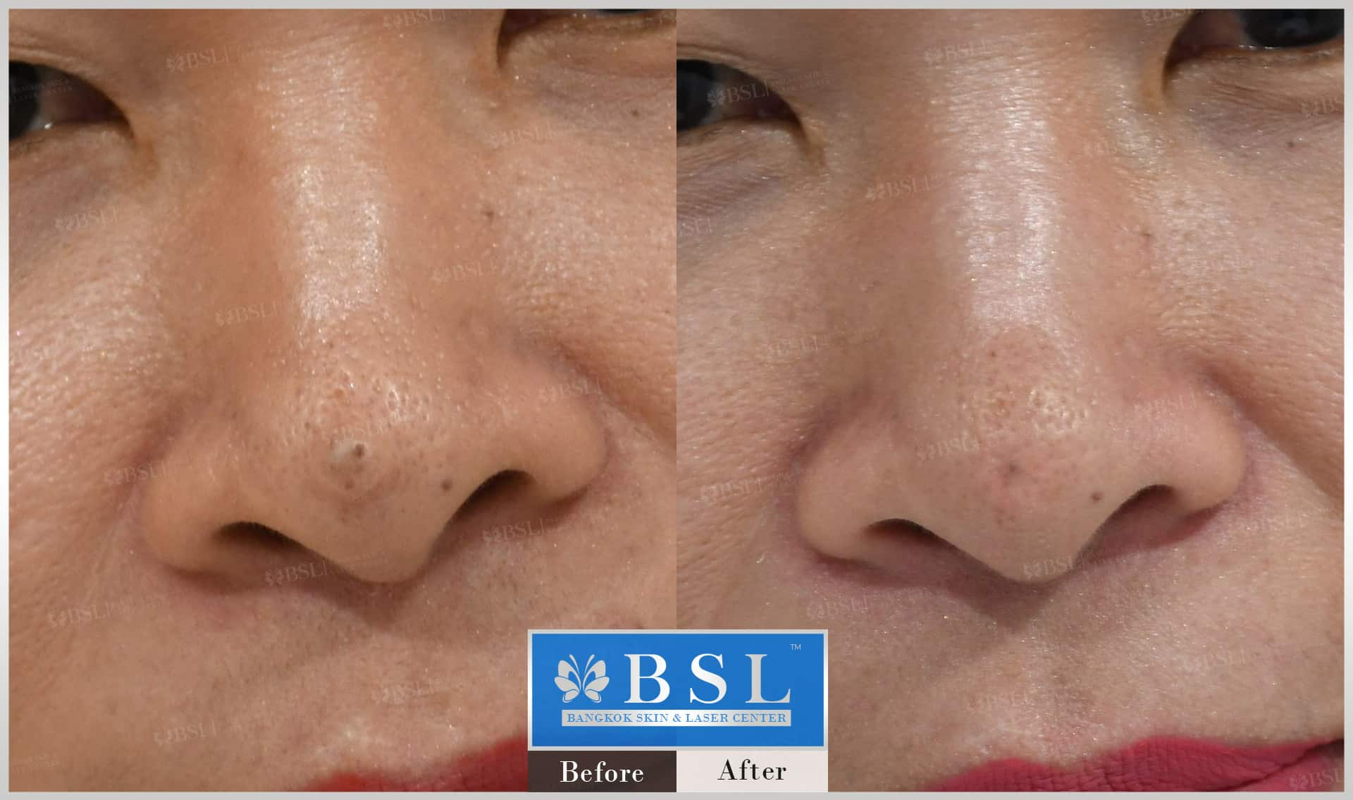 before-after-results-moles-014