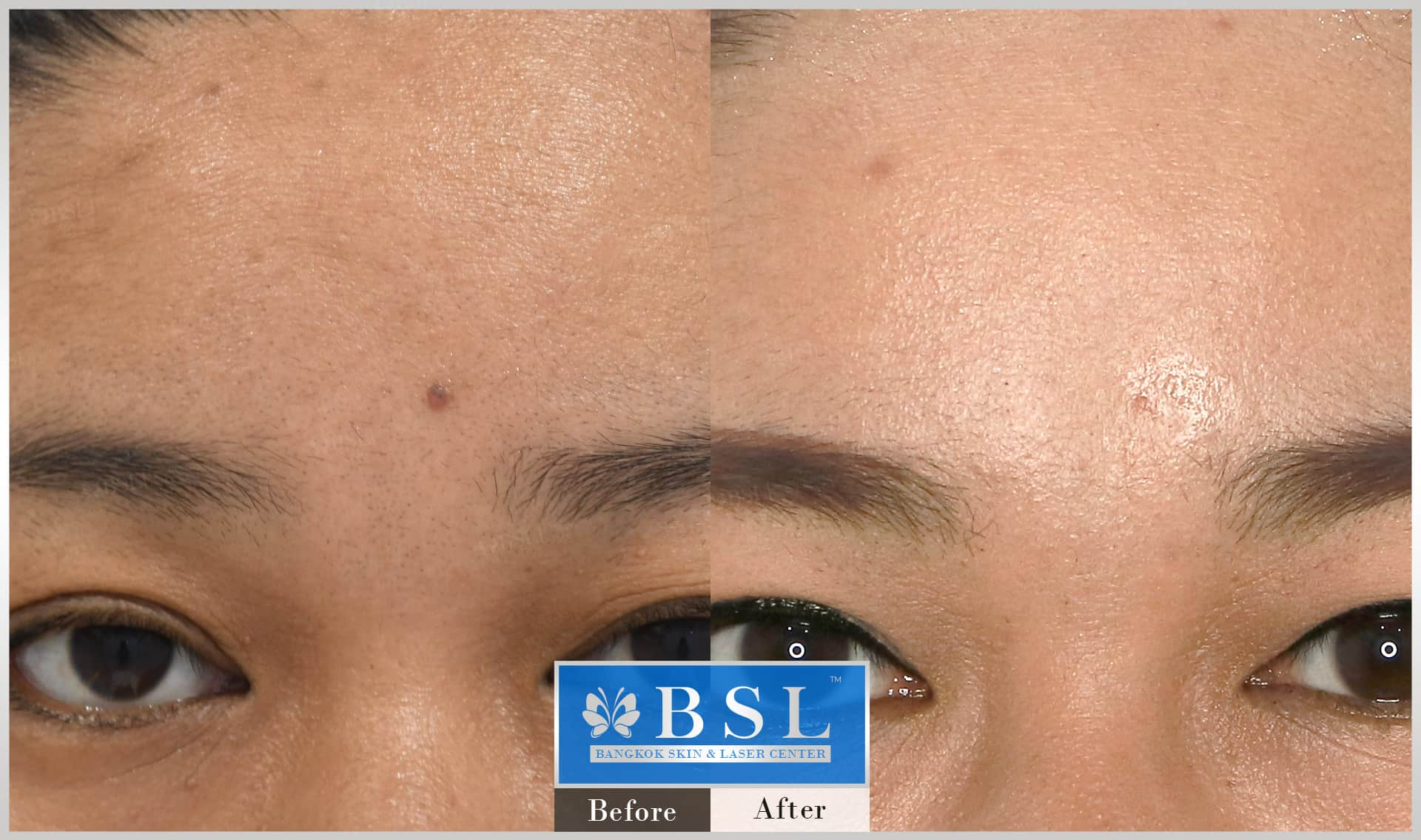 before-after-results-moles-015